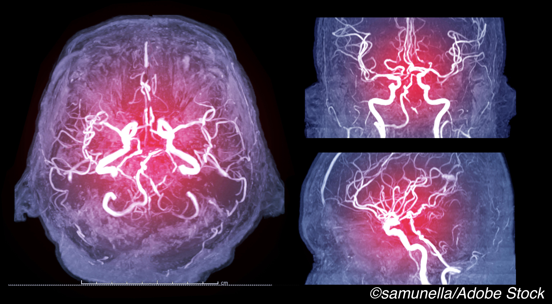 No Advantage of Anterior Stroke EVT in Elderly Patients