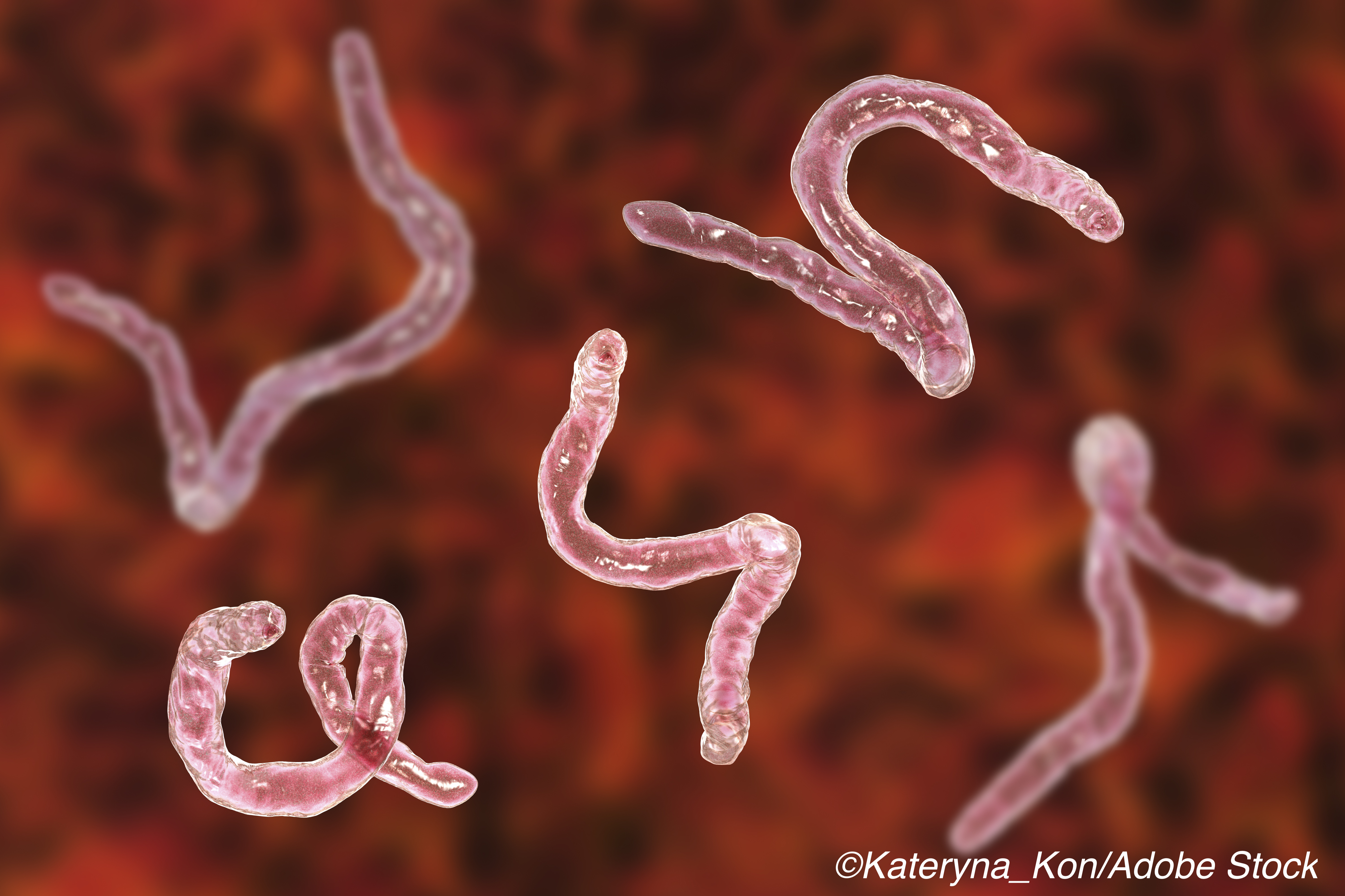 Hookworms: Not Likely to Wiggle Their Way into MS Therapy