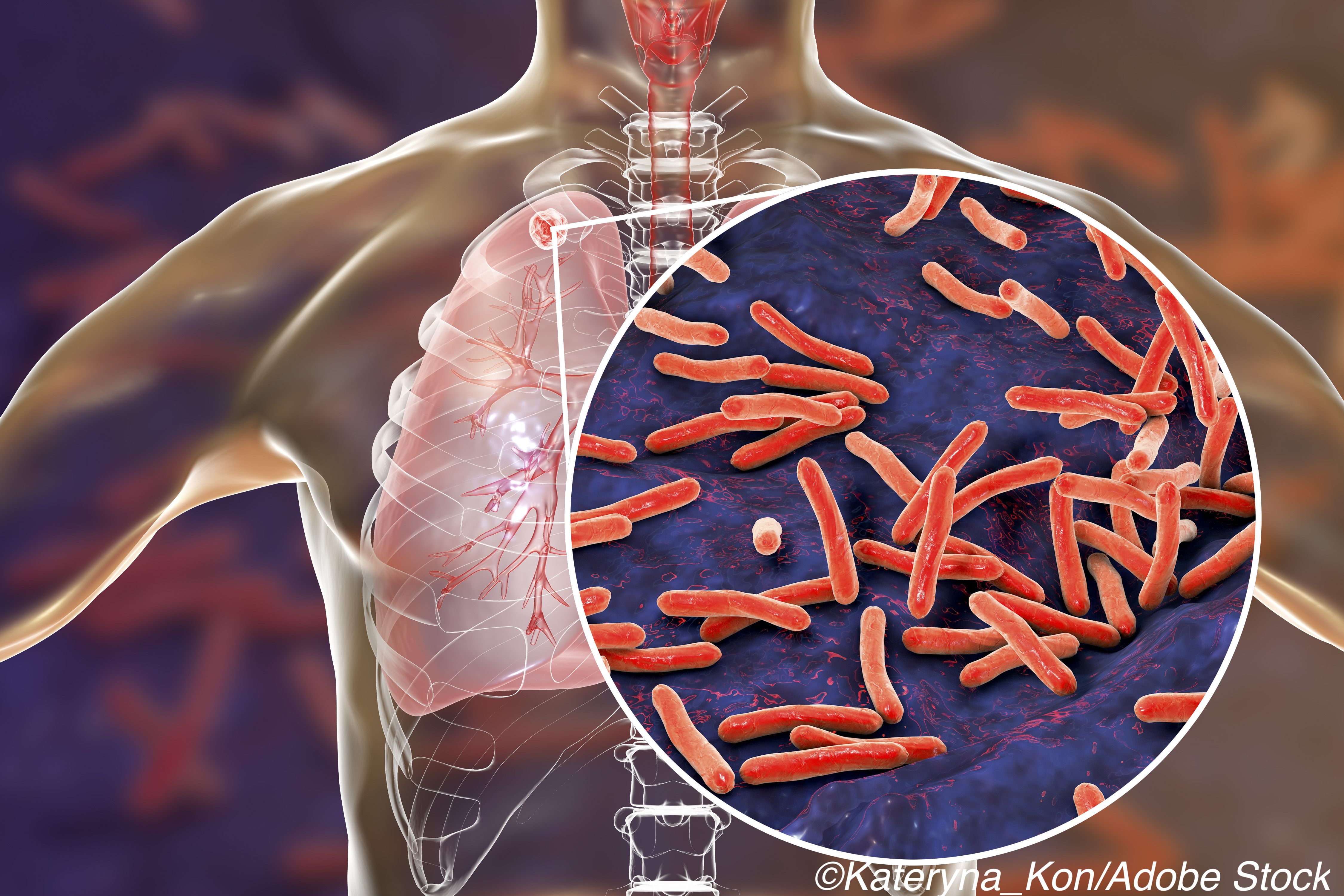 Empirical TB Treatment Fails in Patients with Advanced HIV