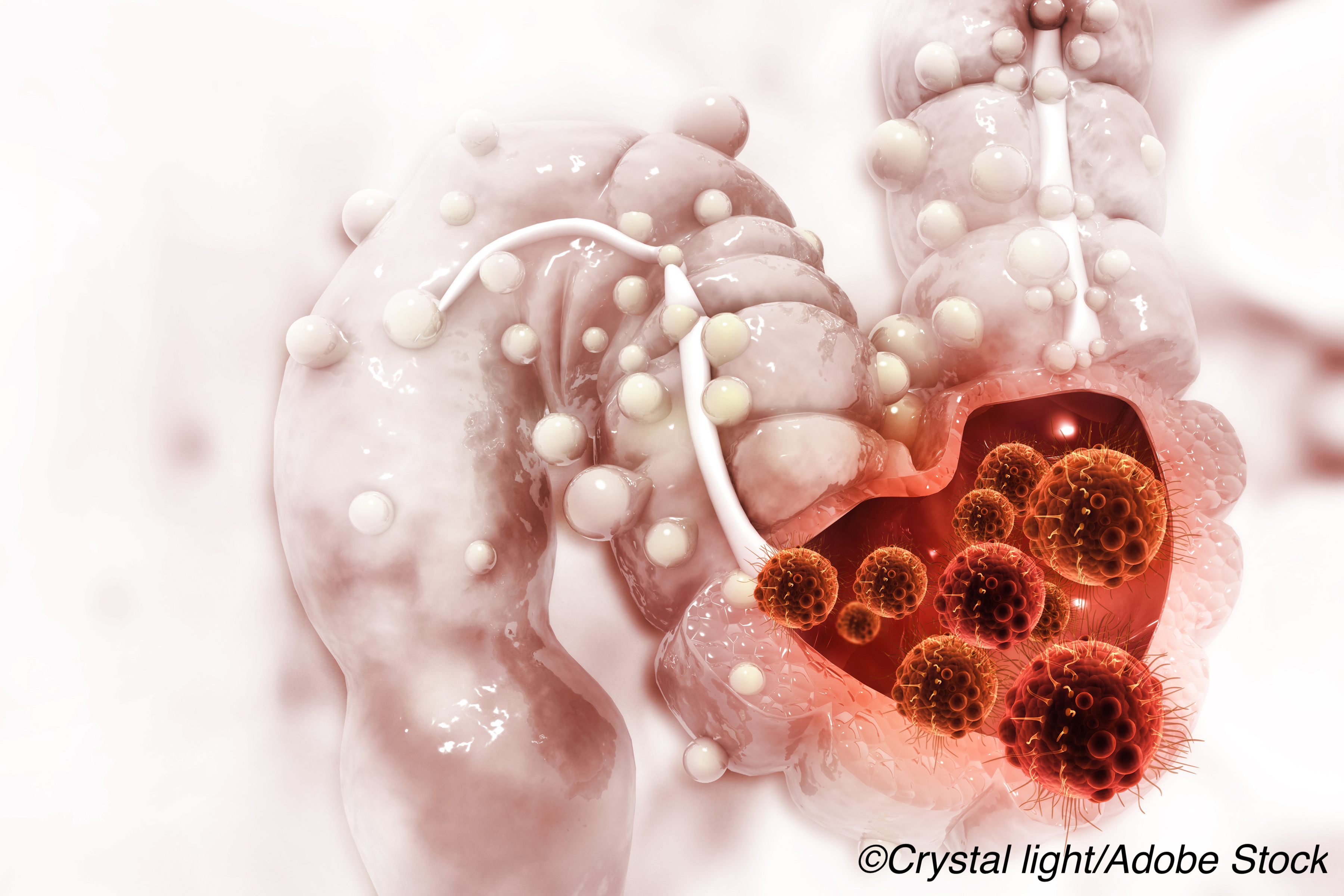 FDA OKs Pembrolizumab for Patients with Metastatic Colorectal Cancer