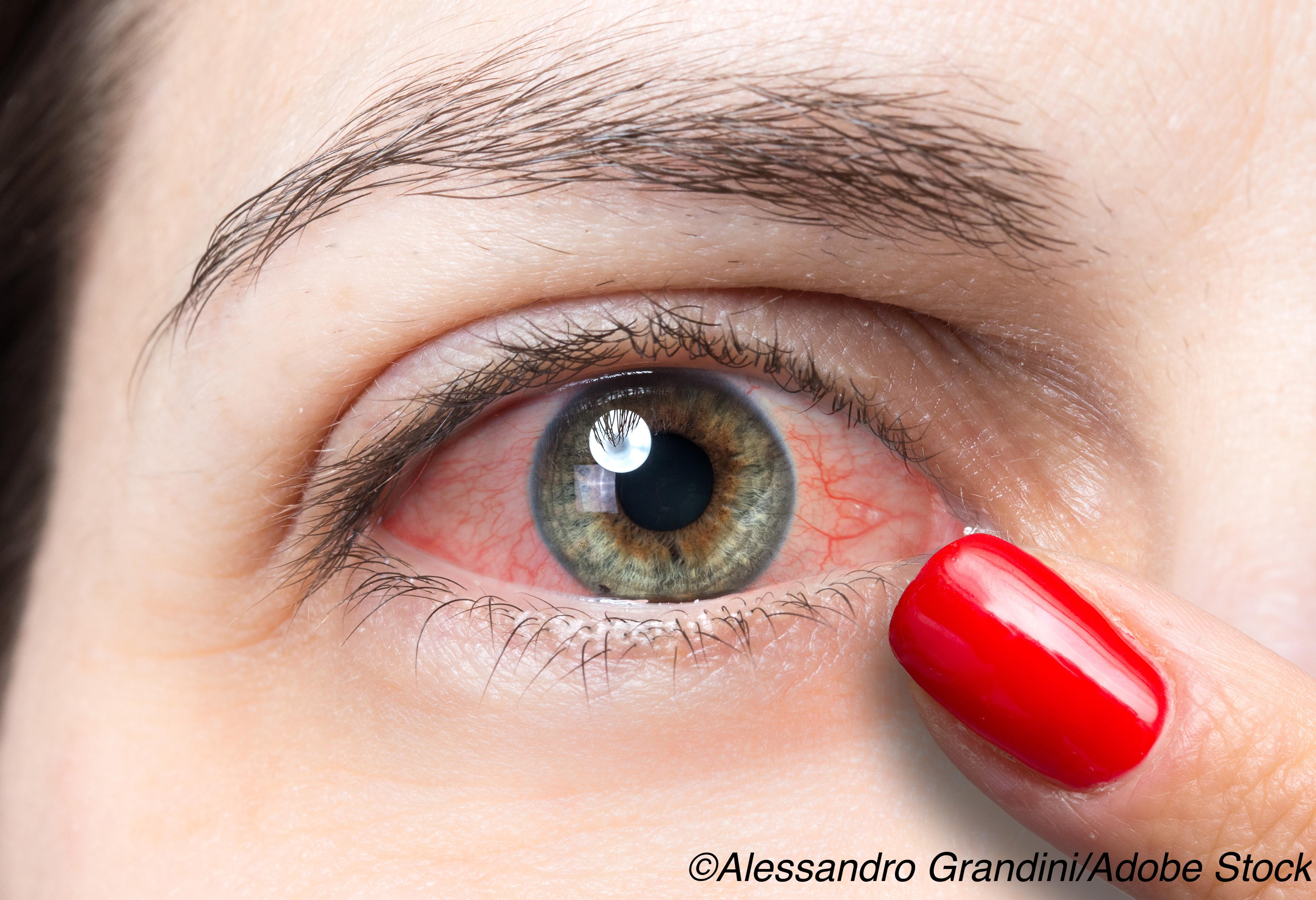 Indoor Environment Could Worsen Dry Eye