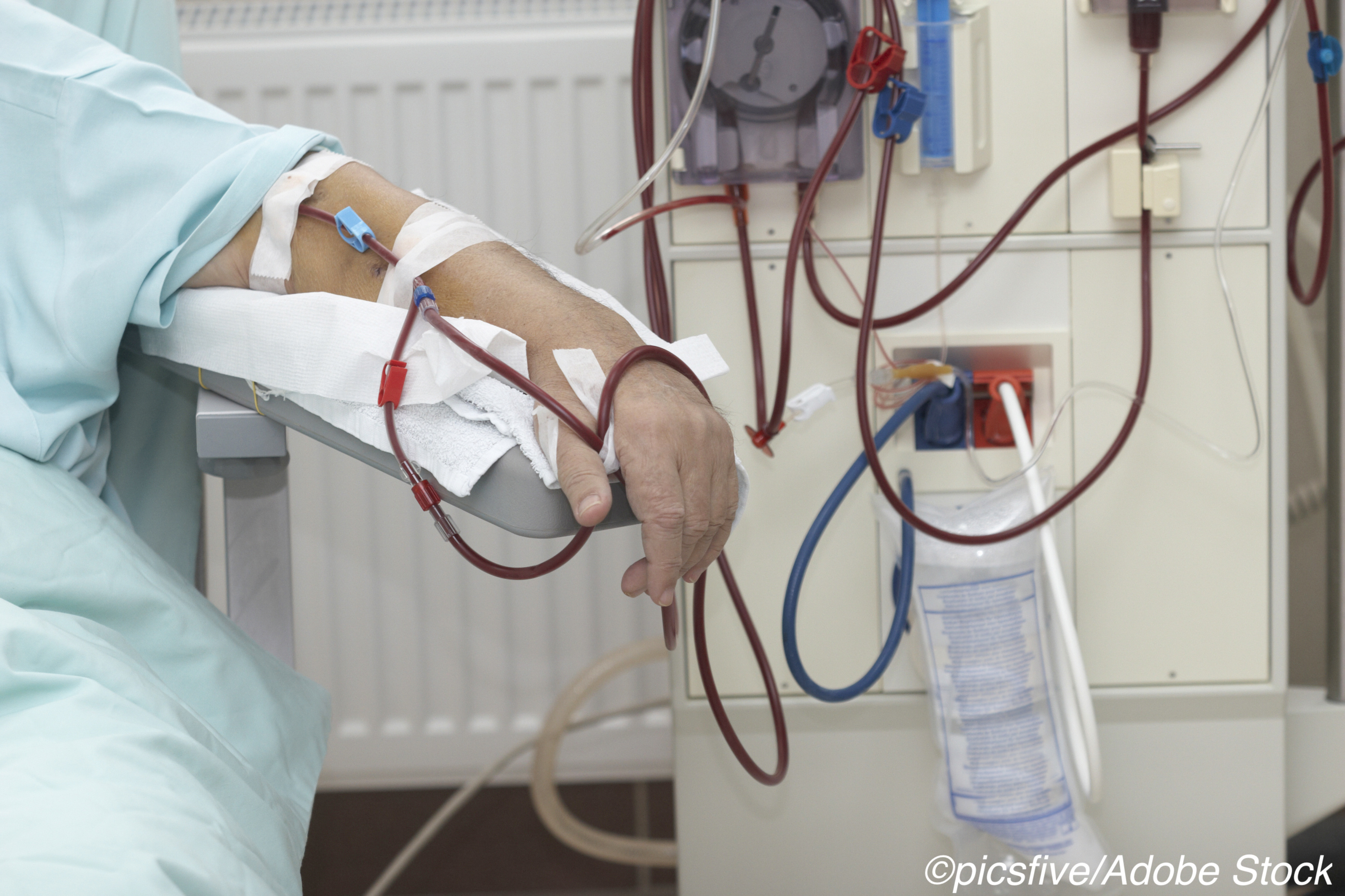 CMS Moves to Improve Access to At-Home Dialysis Options