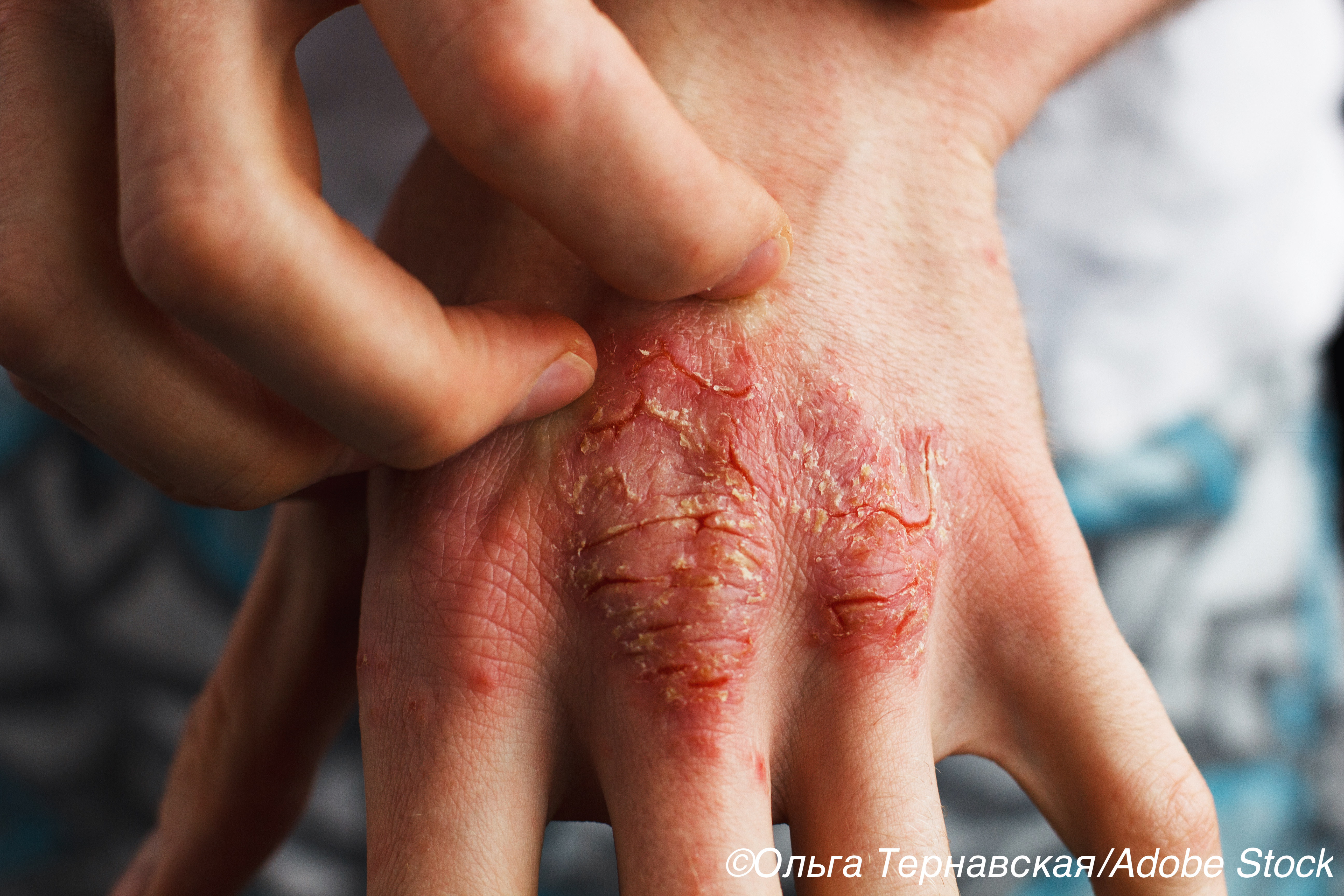 PDE-4 Inhibitor Cream Shows Promise for Psoriasis