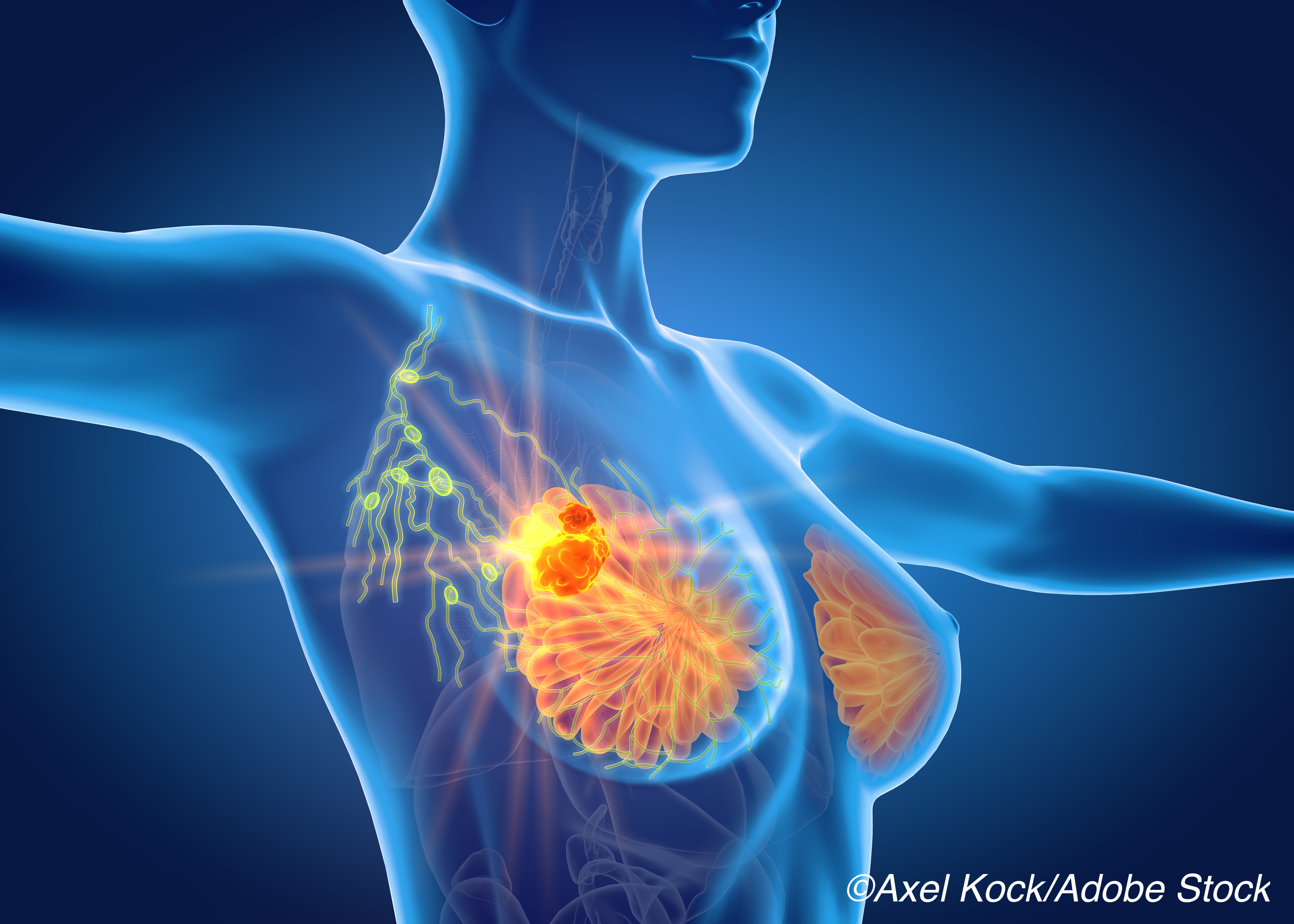 Pathologic Complete Response with Neoadjuvant TX Associated with Outstanding Breast Ca Outcomes