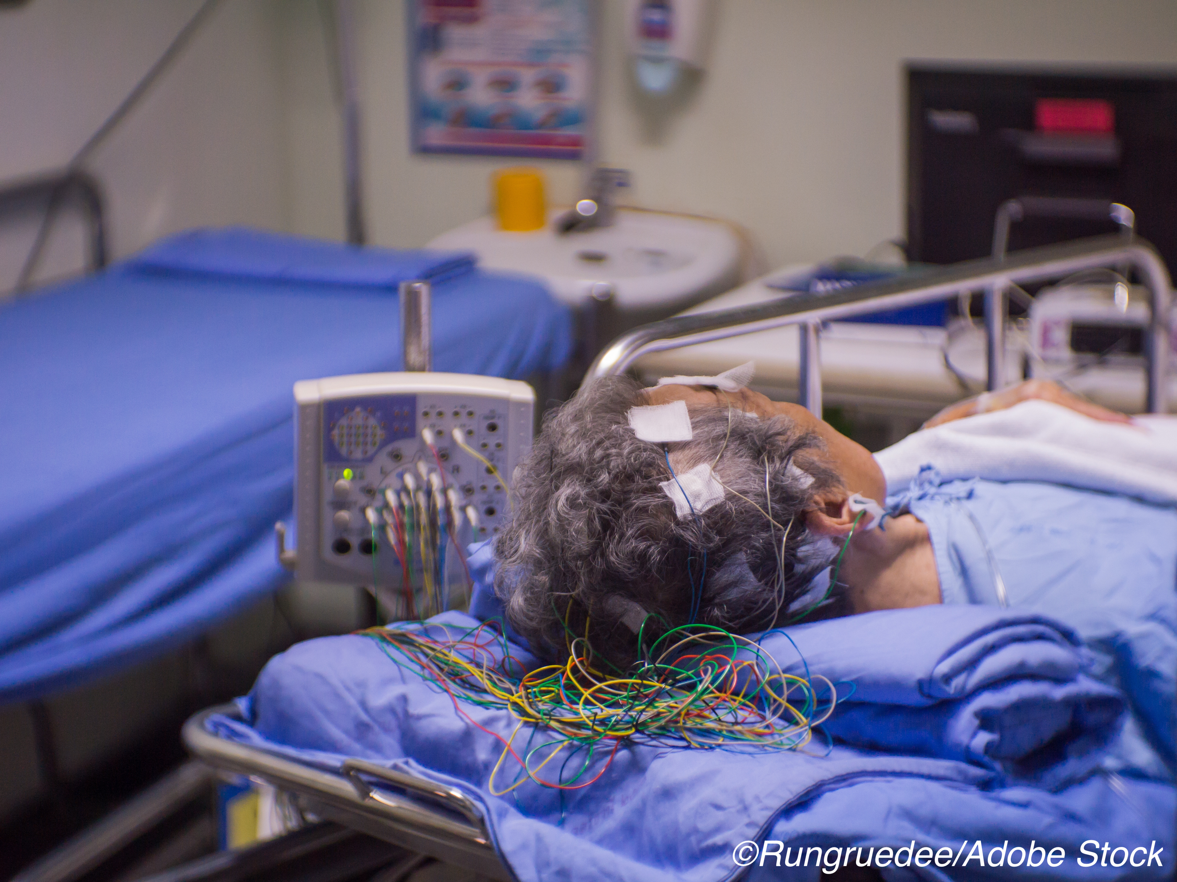Continuous or Routine EEG for Critically Ill Patients?