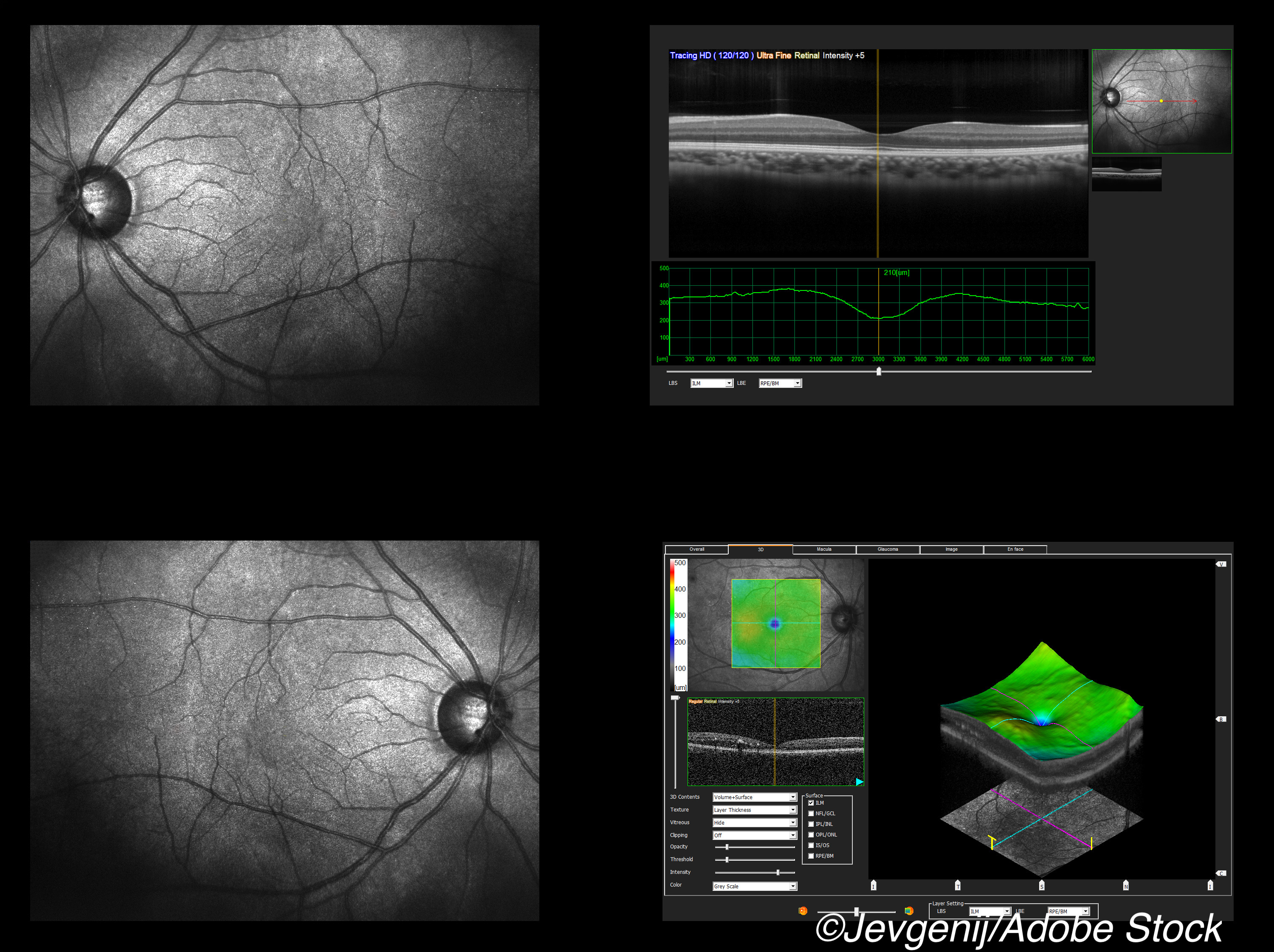 Detecting Asymptomatic Optic Nerve Lesions in CIS