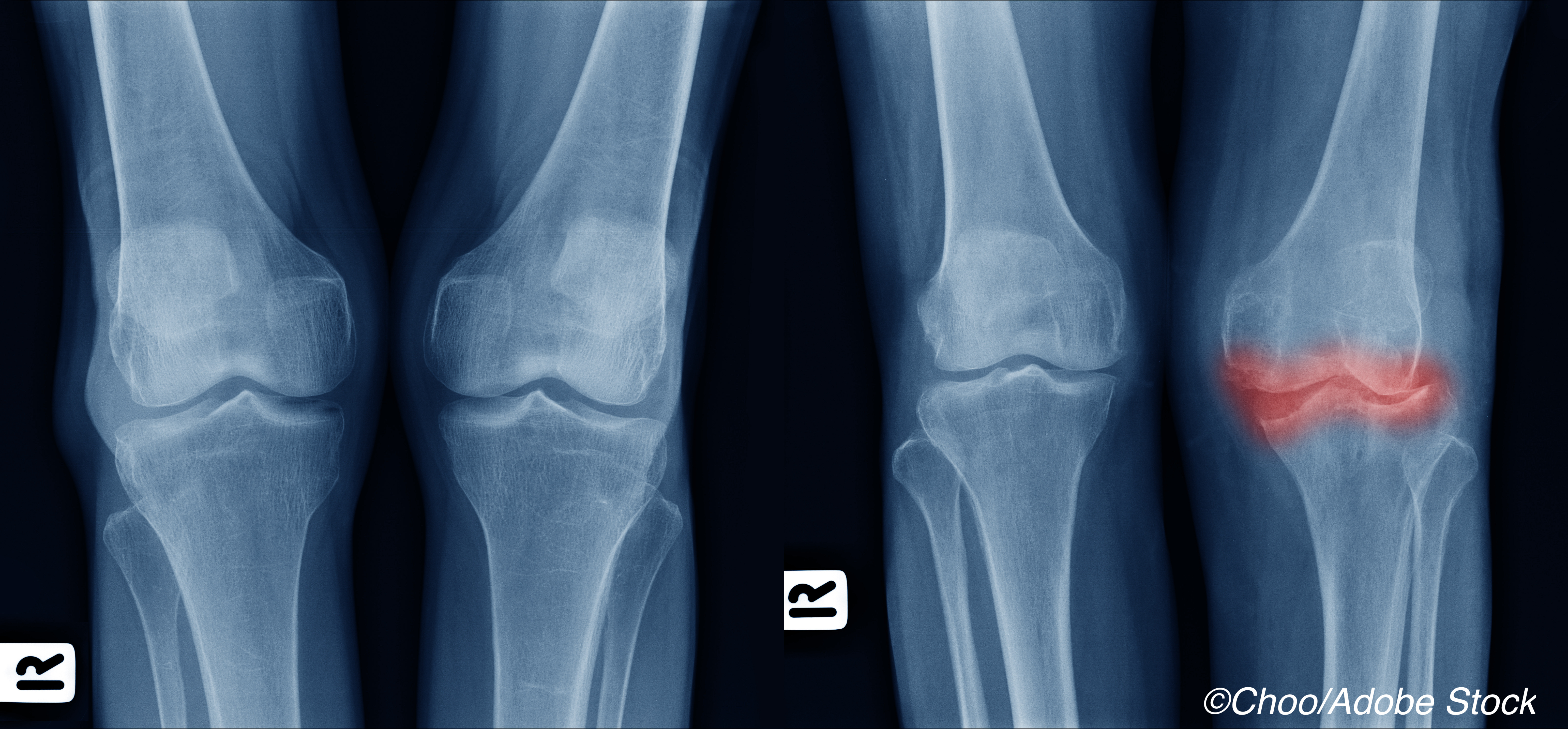Canakinumab Shows Promise as Treatment for Osteoarthritis