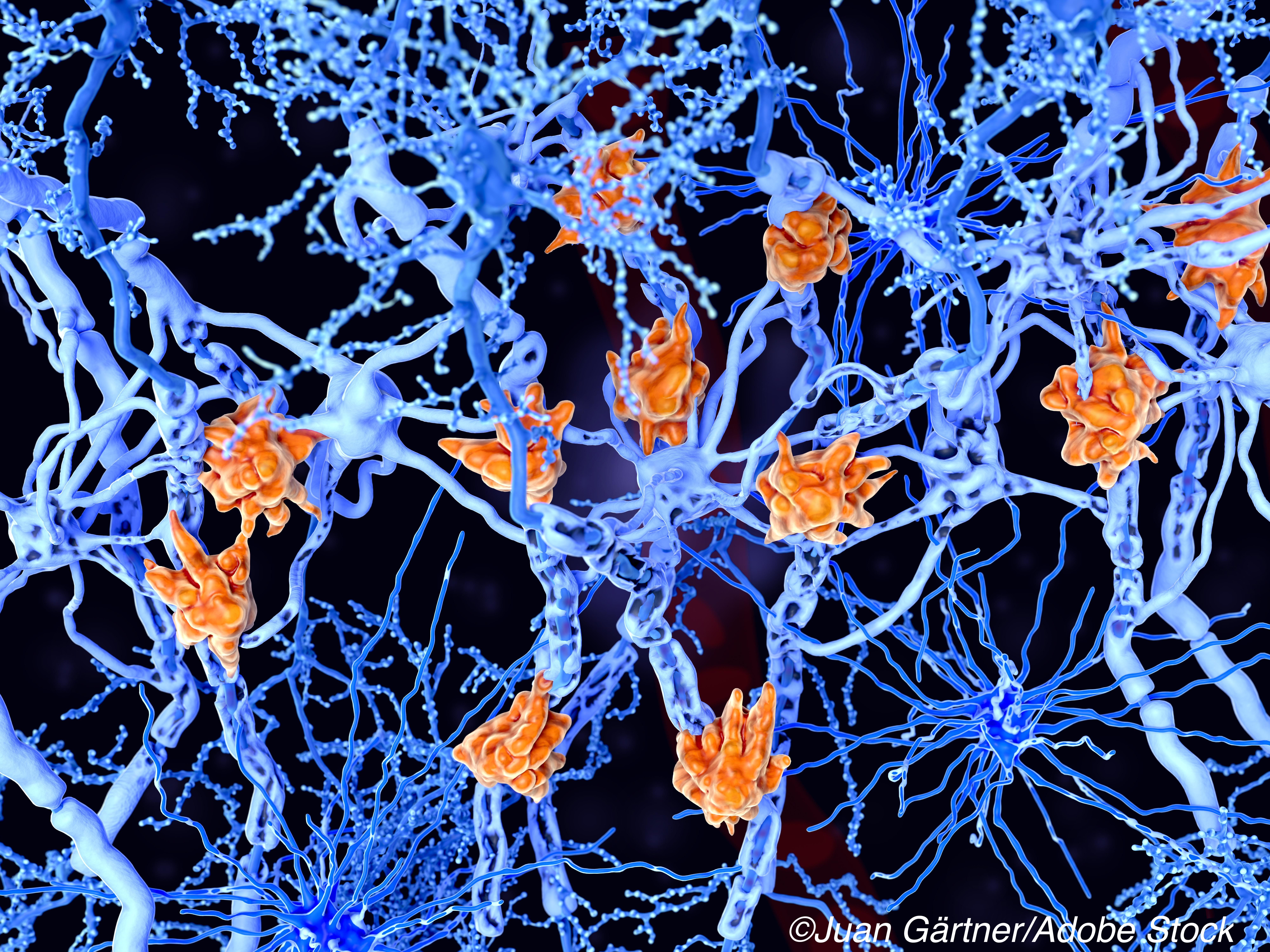 CMSC: Leukemia Drug Ofatumumab Slows Multiple Sclerosis Relapse