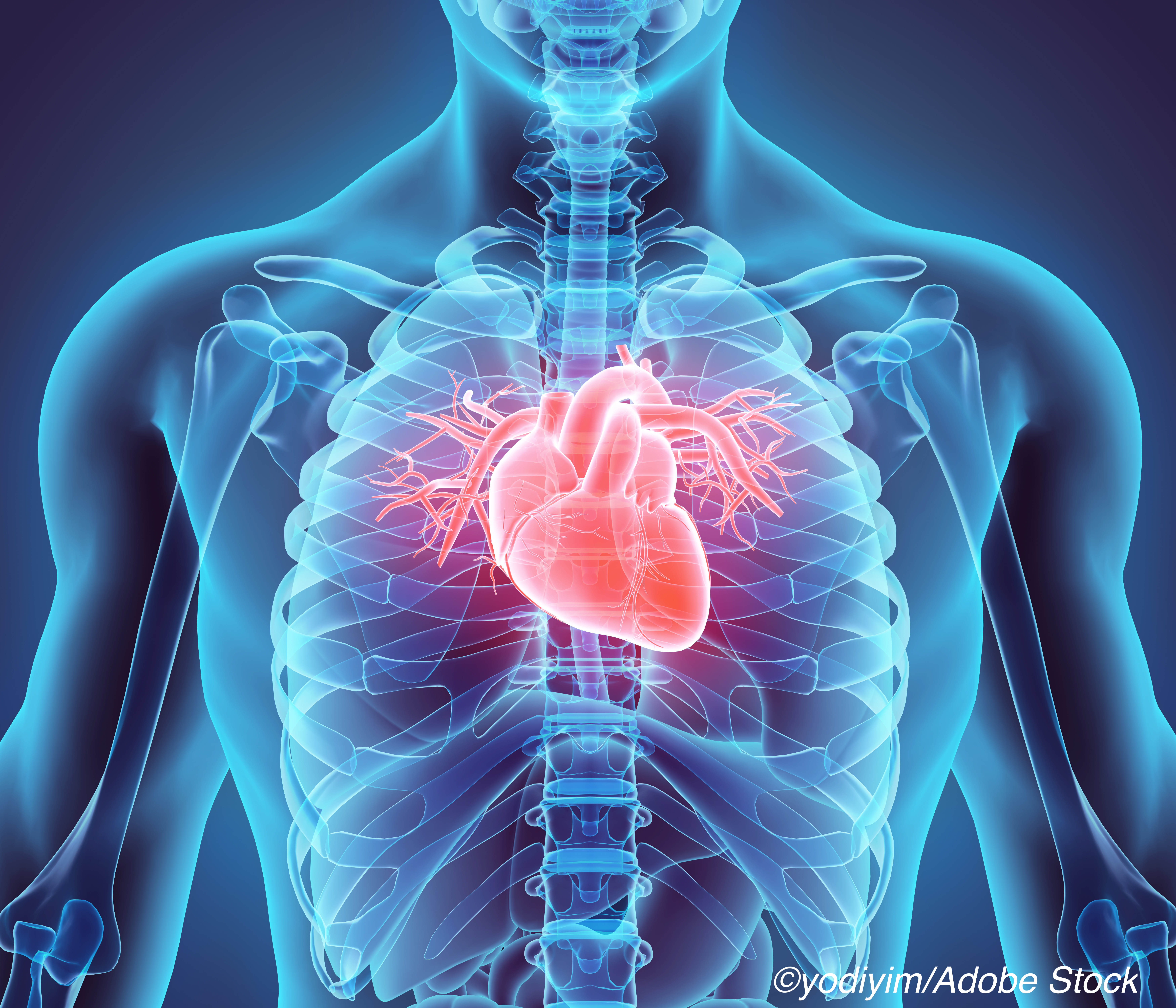 Sarcoidoisis Tied To Long-Term Heart Risks