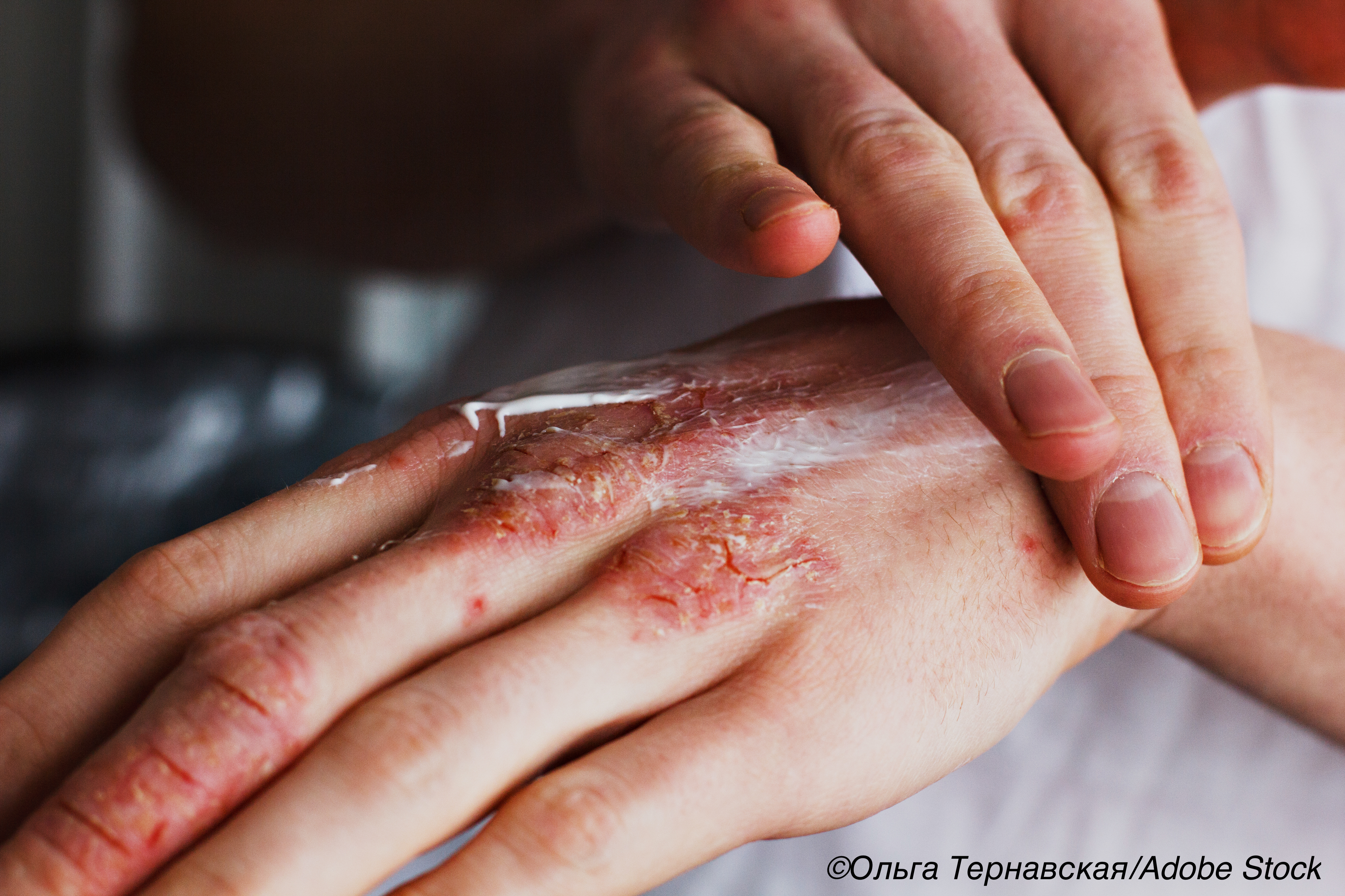 Topical Calcineurin Inhibitors for Atopic Dermatitis Safe