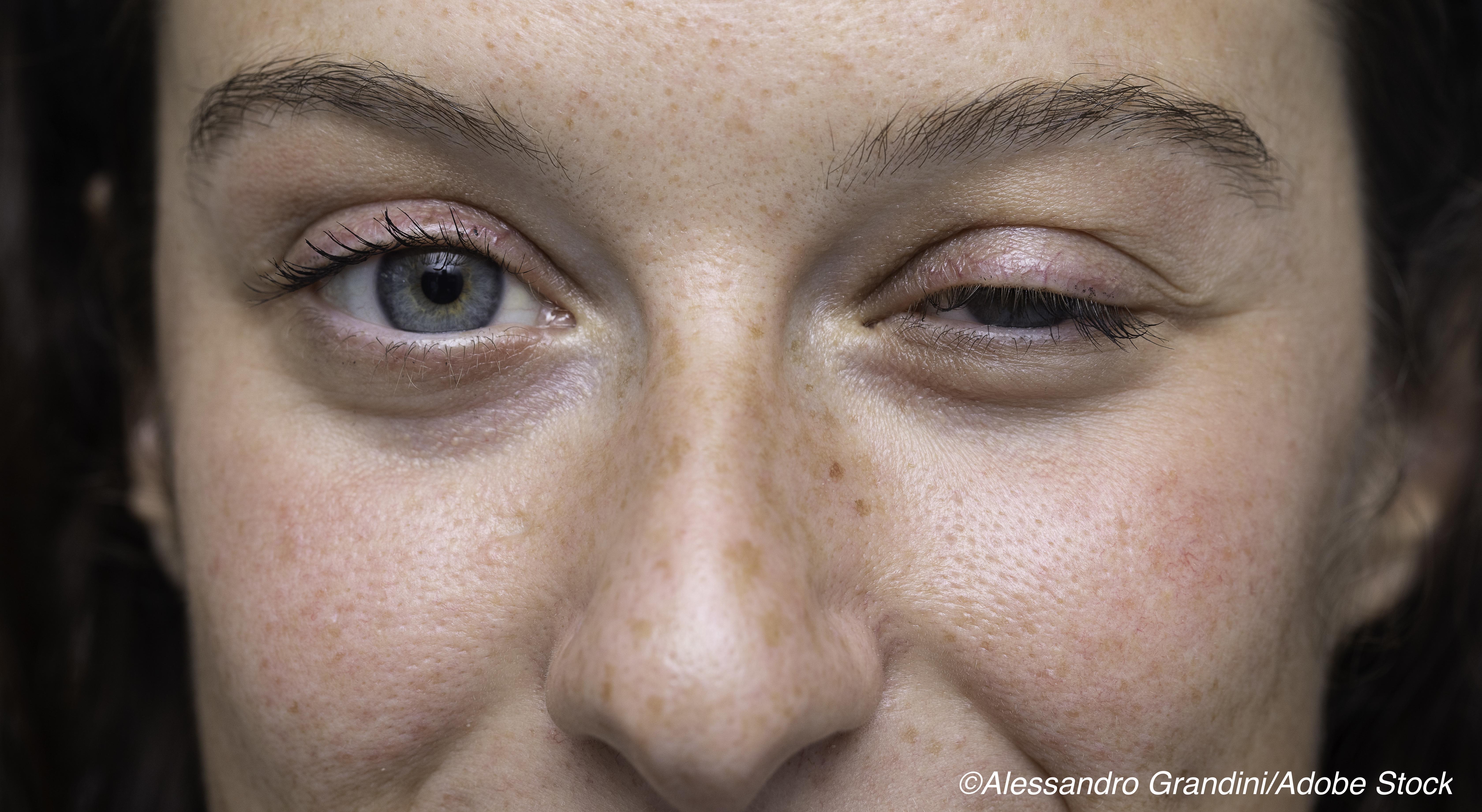 Diagnosing Ocular Myasthenia Gravis