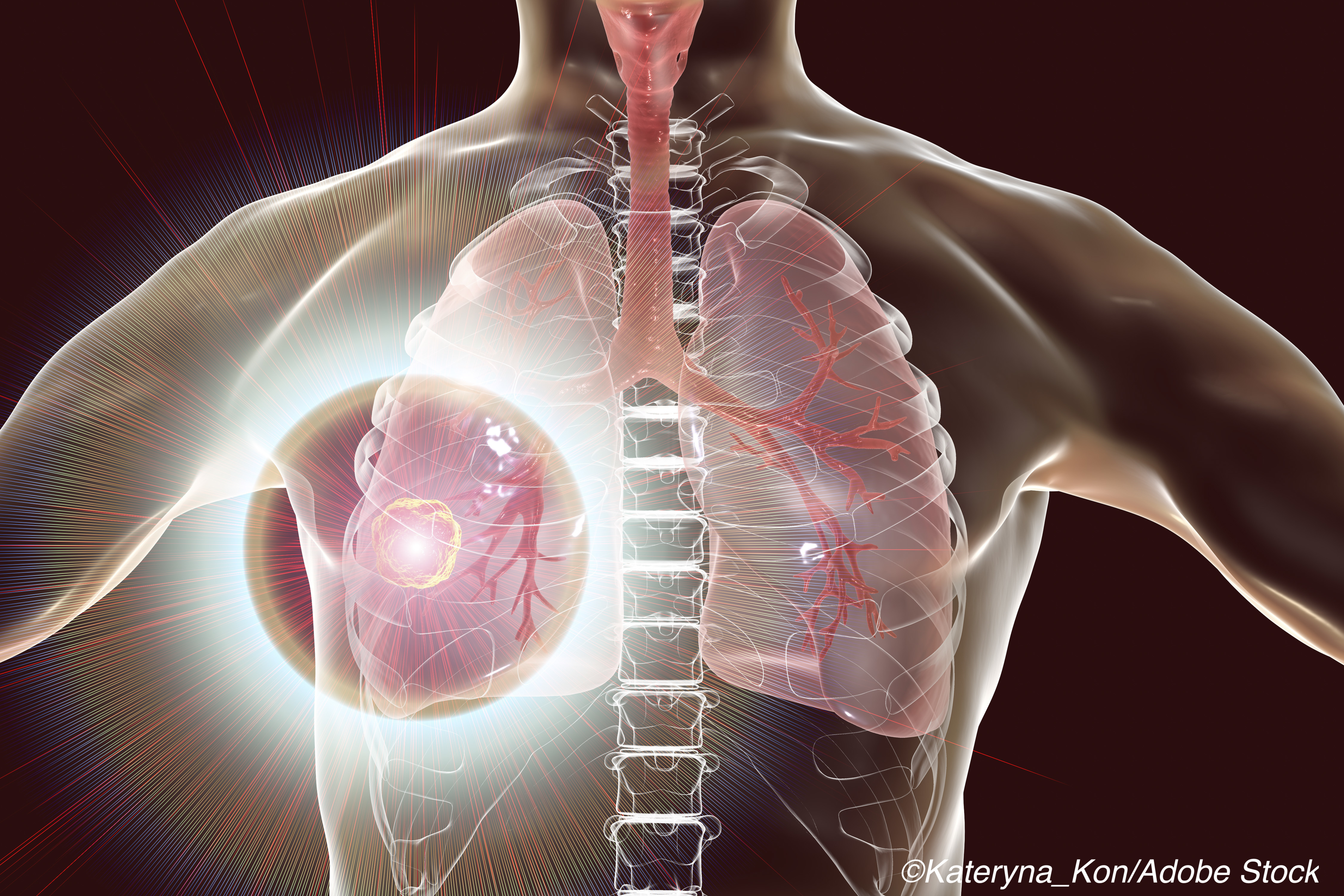 Decline in Death from NSCLC Points to Decreased Incidence and Better Survival Post-Dx