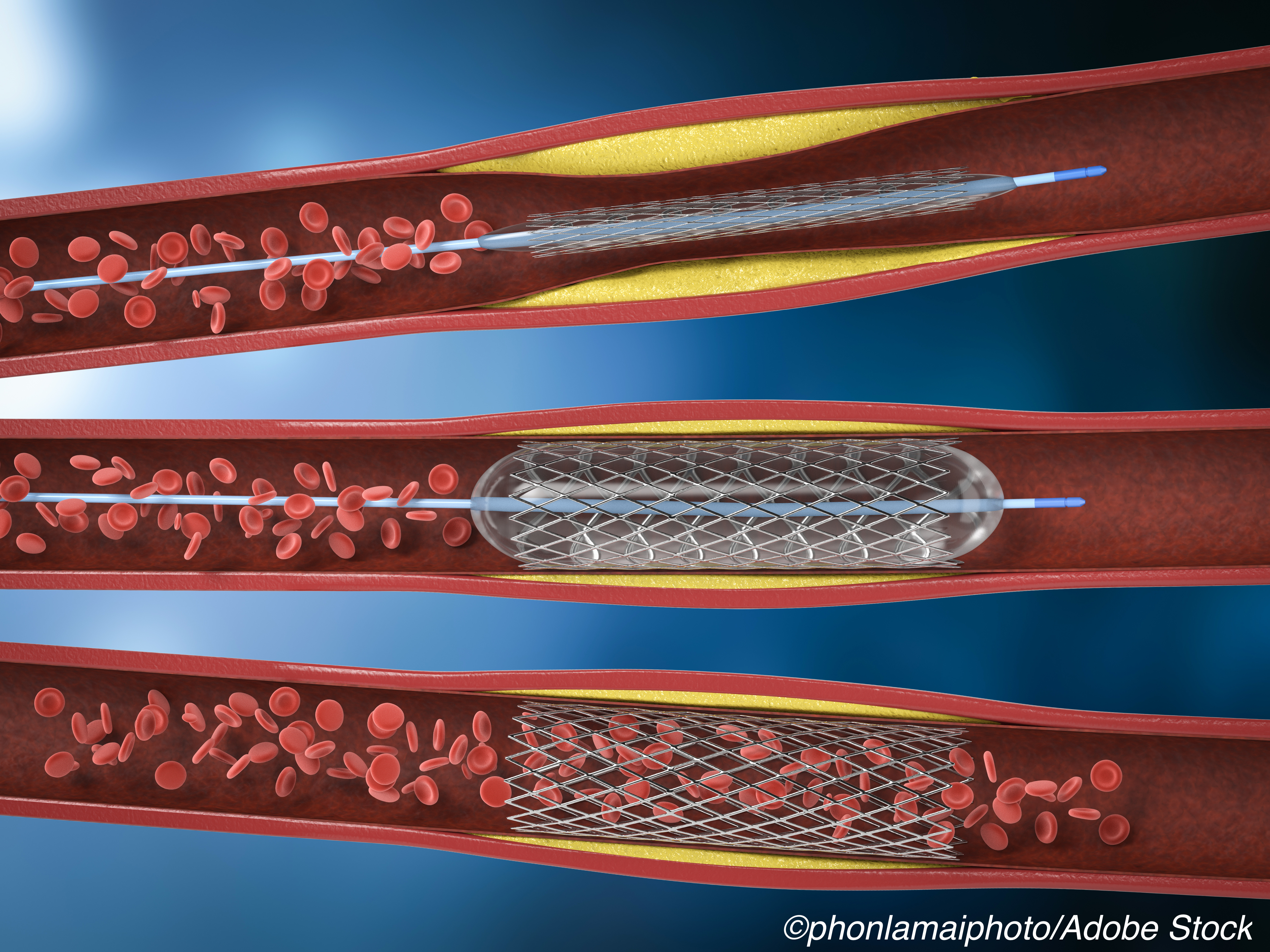 CABG or Stent? 10-Year SYNTAXES Data Find Equipoise