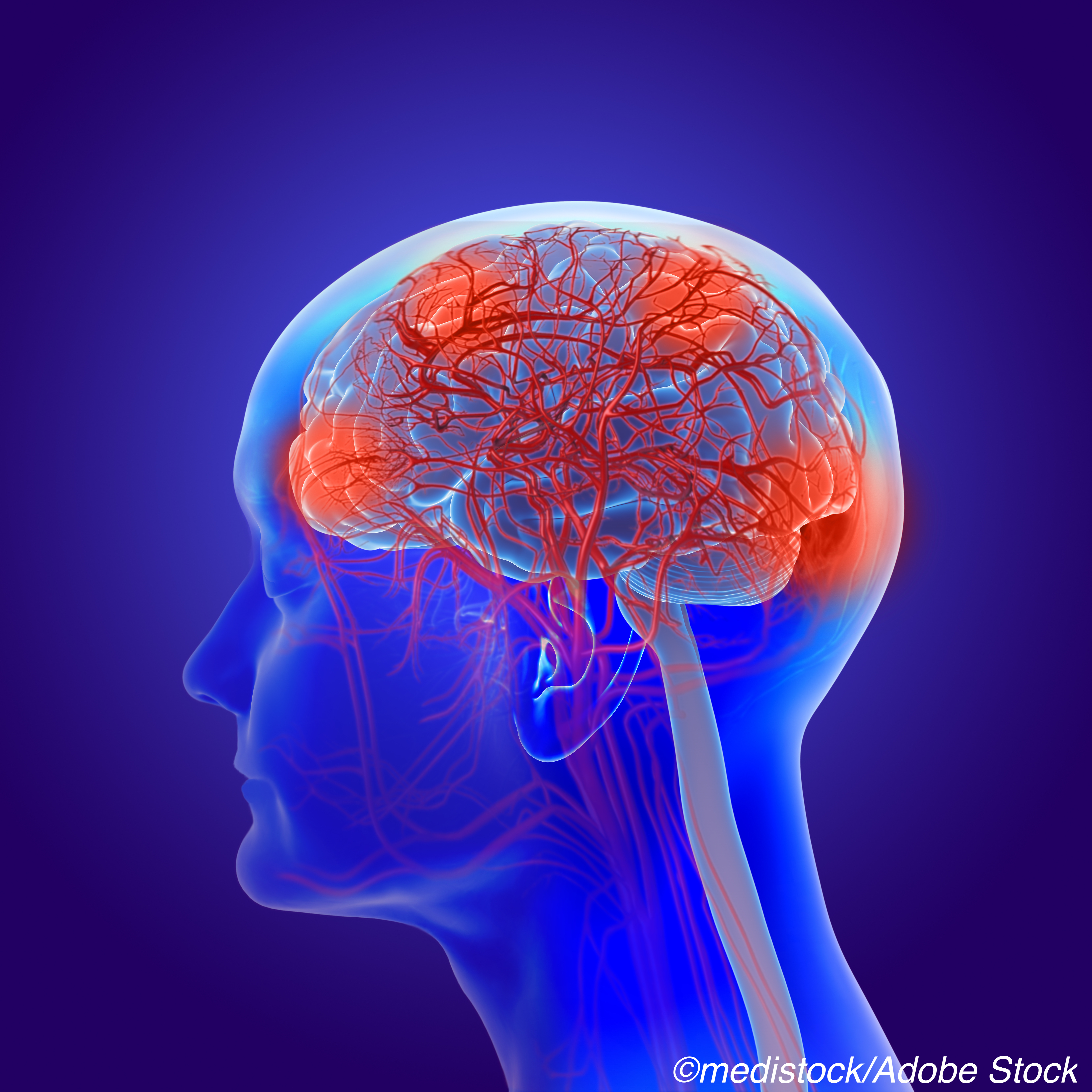 Two Early Parkinson's Biotypes Differ Anatomically, Clinically