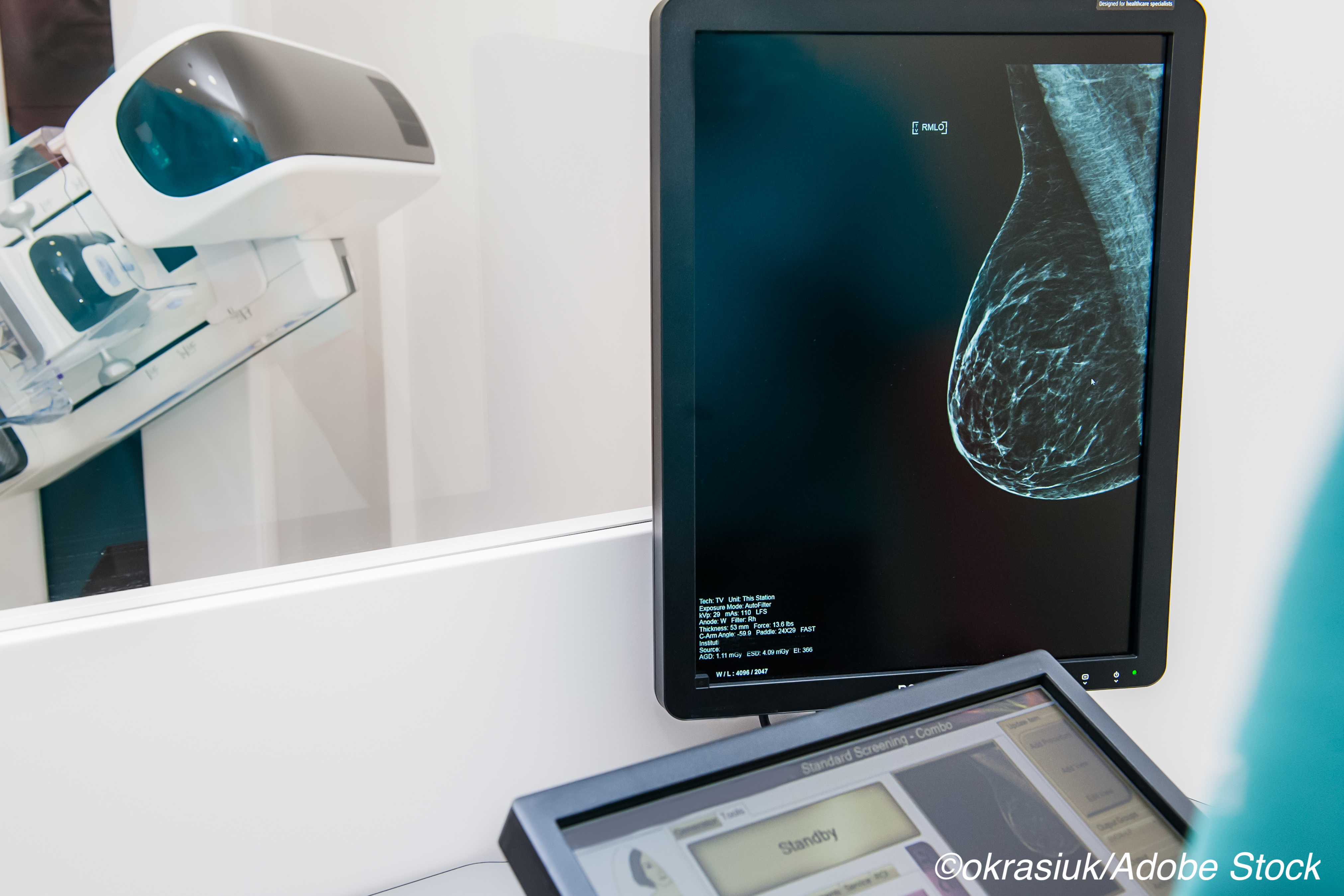 AI as Effective as Radiologists in Assessing Mammograms
