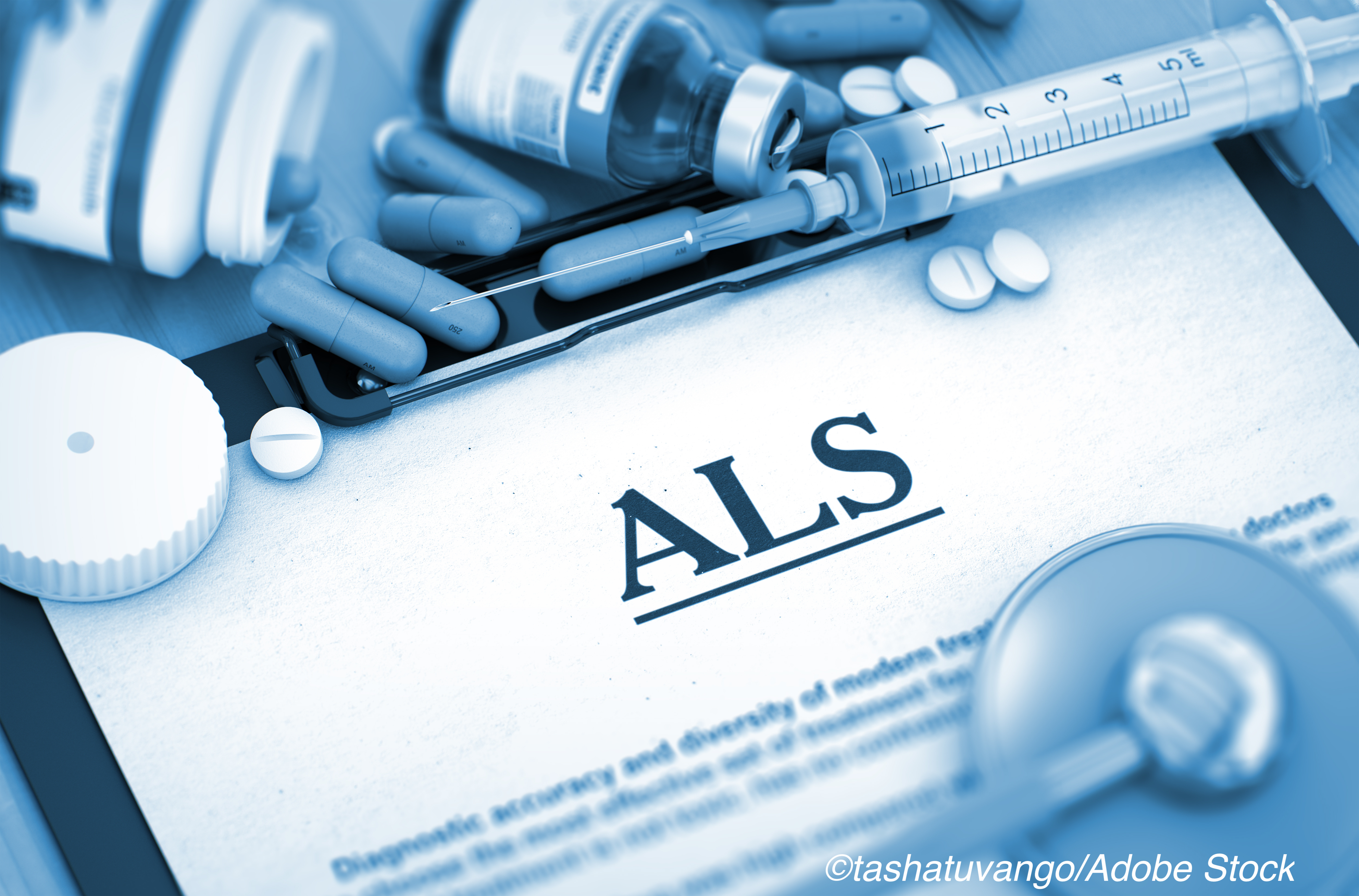Investigational ALS Treatment Shows Benefit Over Placebo