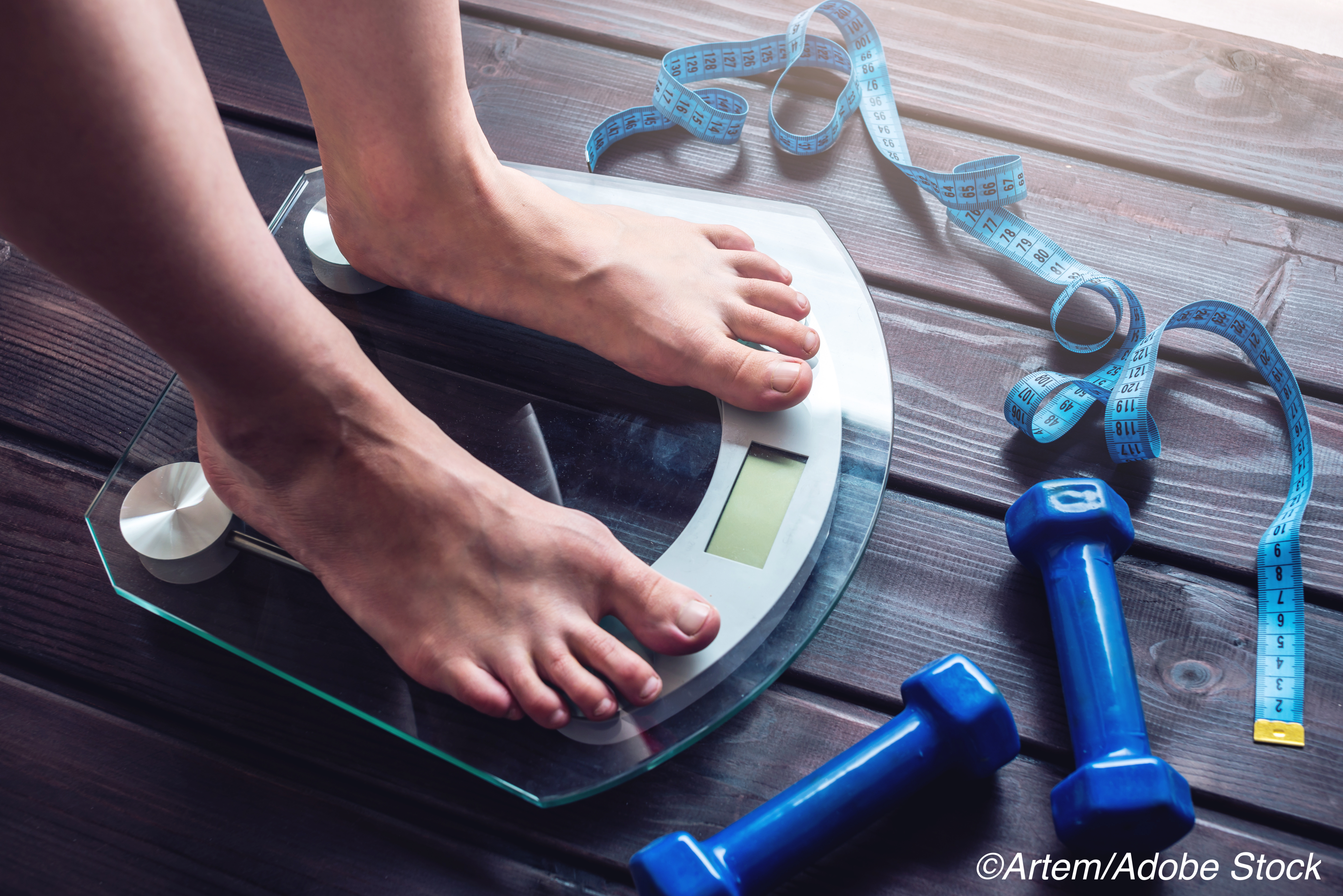 High-Intensity Intervention PROPELs Weight Loss in Primary Care Setting