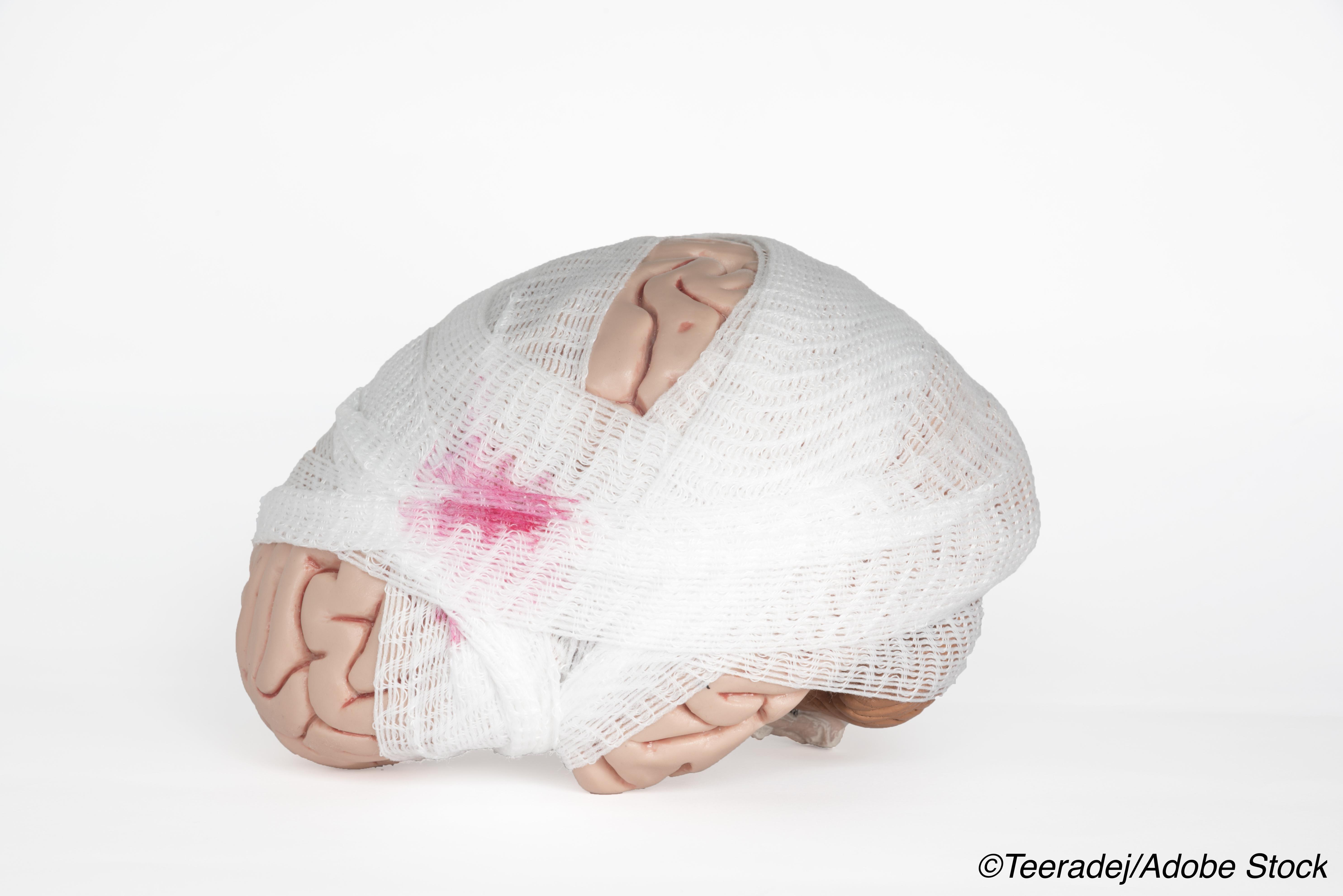 TBI Outcomes No Different With Pre-Hospital Tranexamic Acid