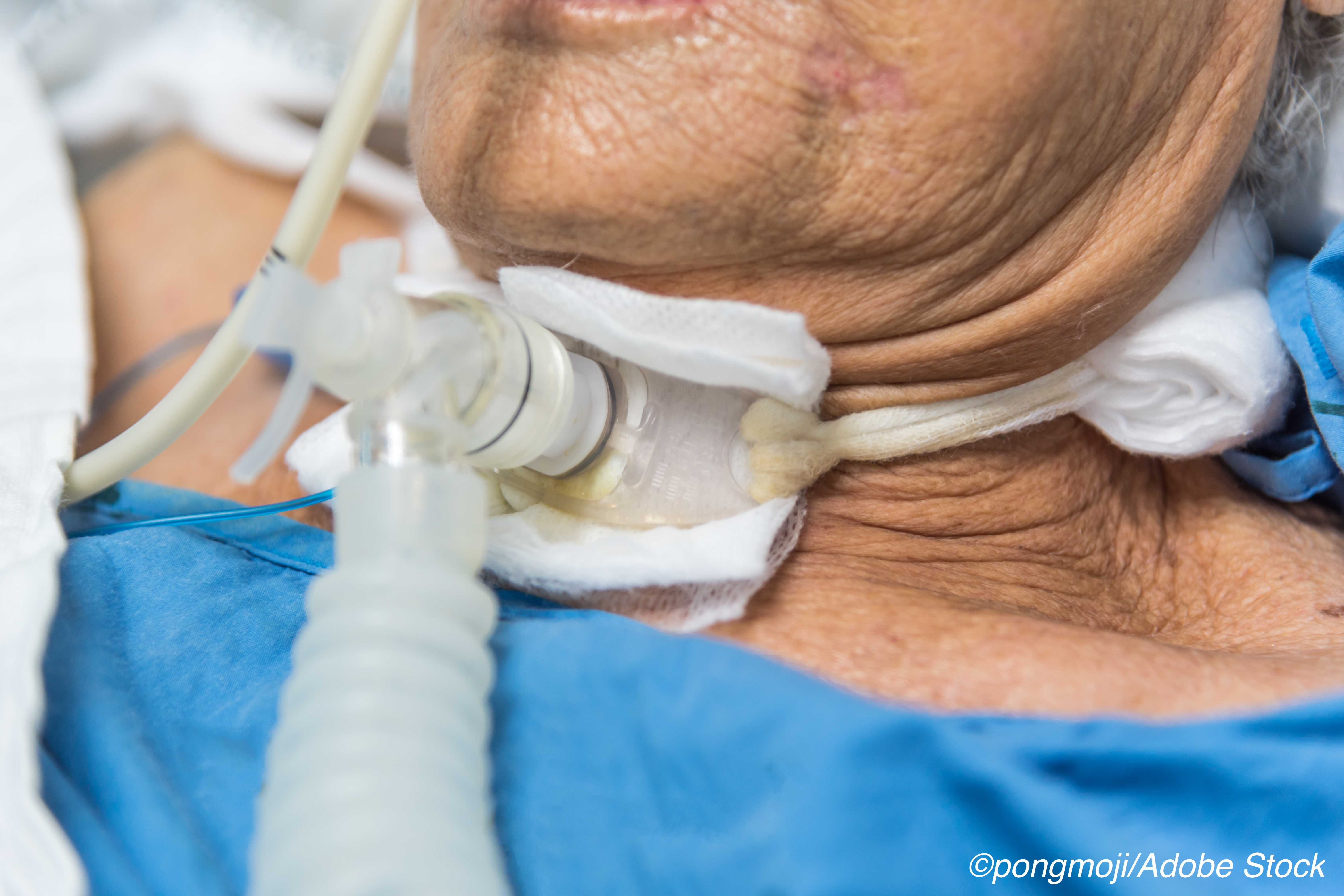 Suctioning-Guided Strategy for Removal Reduces Trach Tube Time