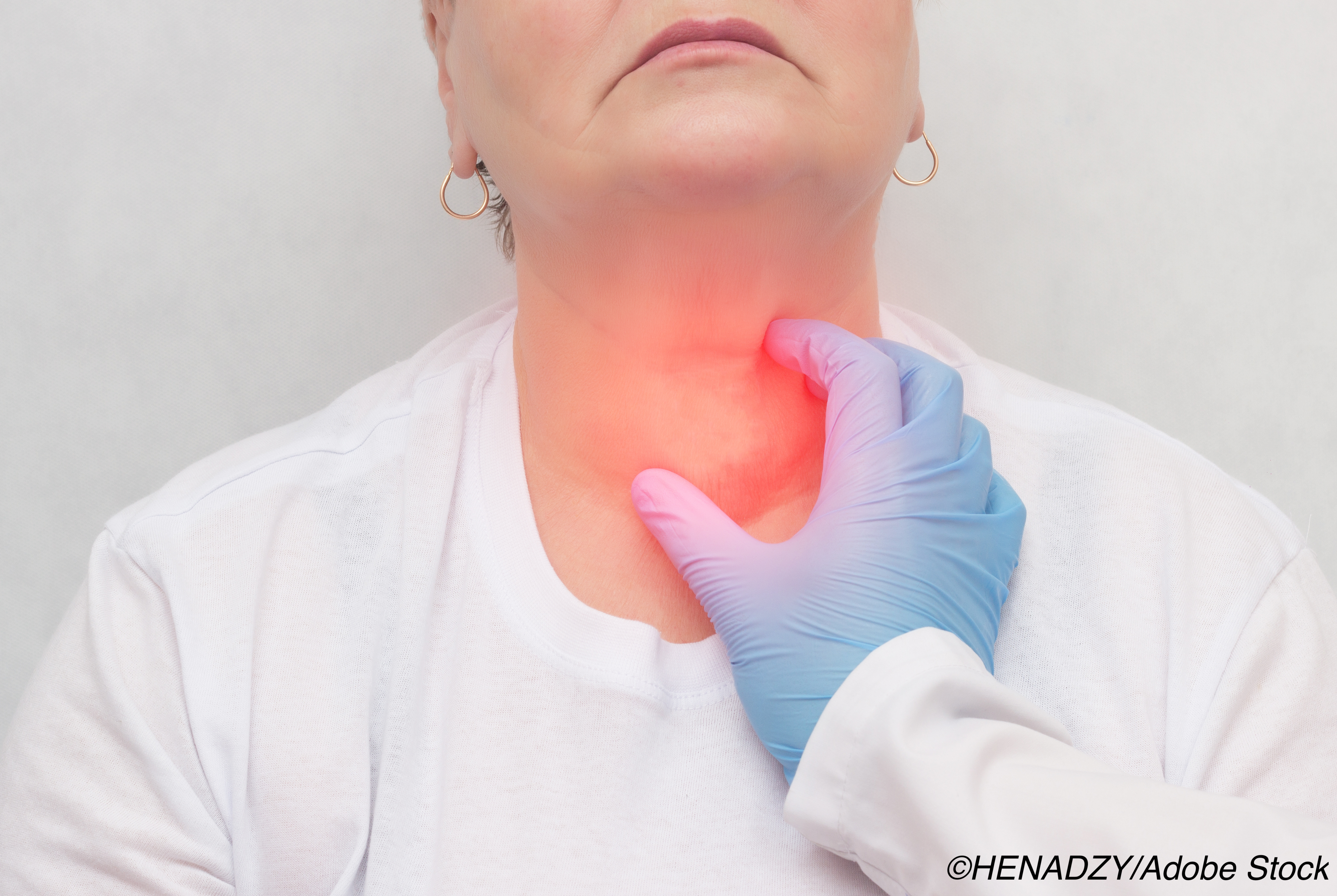 ACTRIMS-ECTRIMS: Thyroid Disorders  Don't Affect MS Control