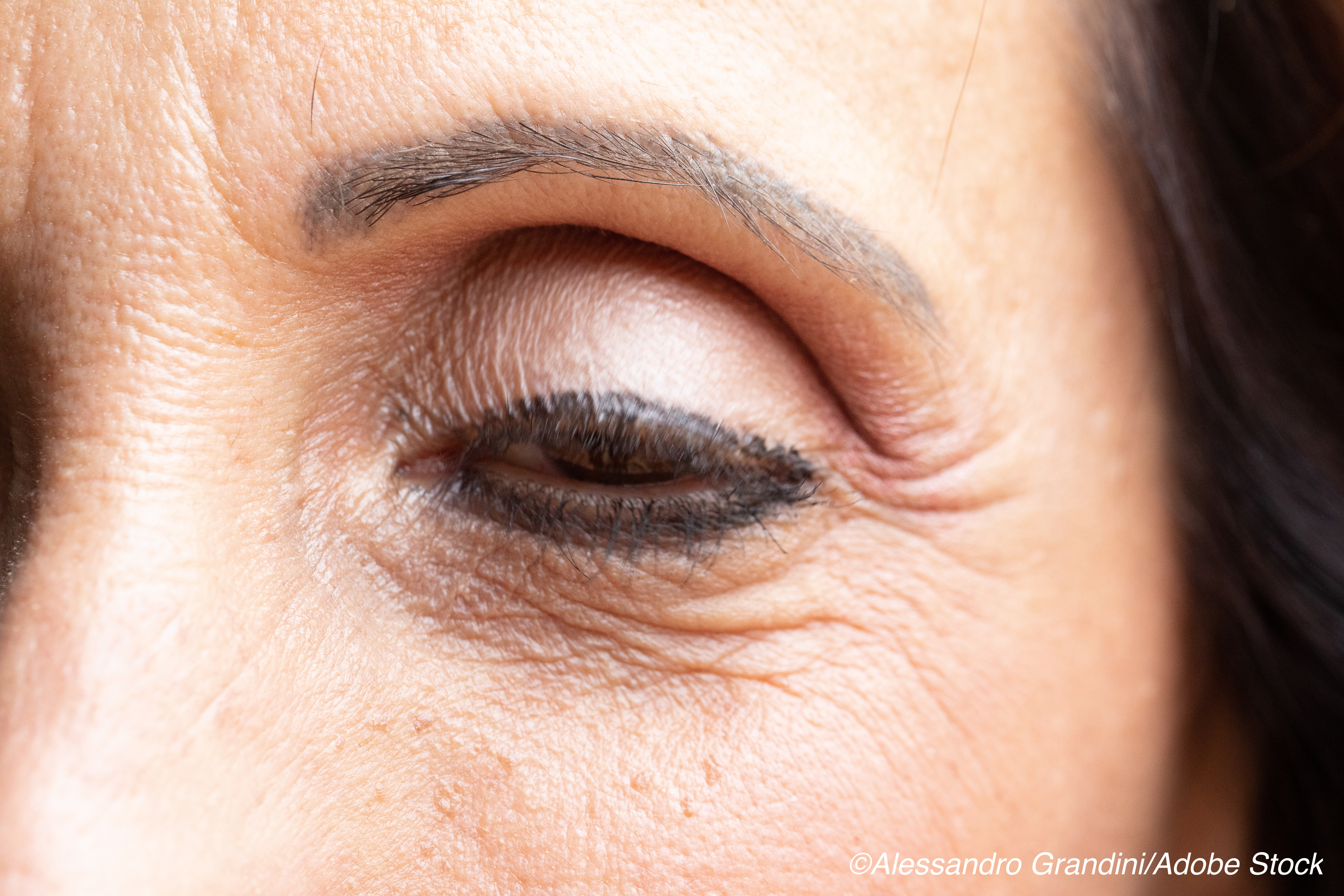 Study Finds Medical Therapy Effective for Drooping Eyelids