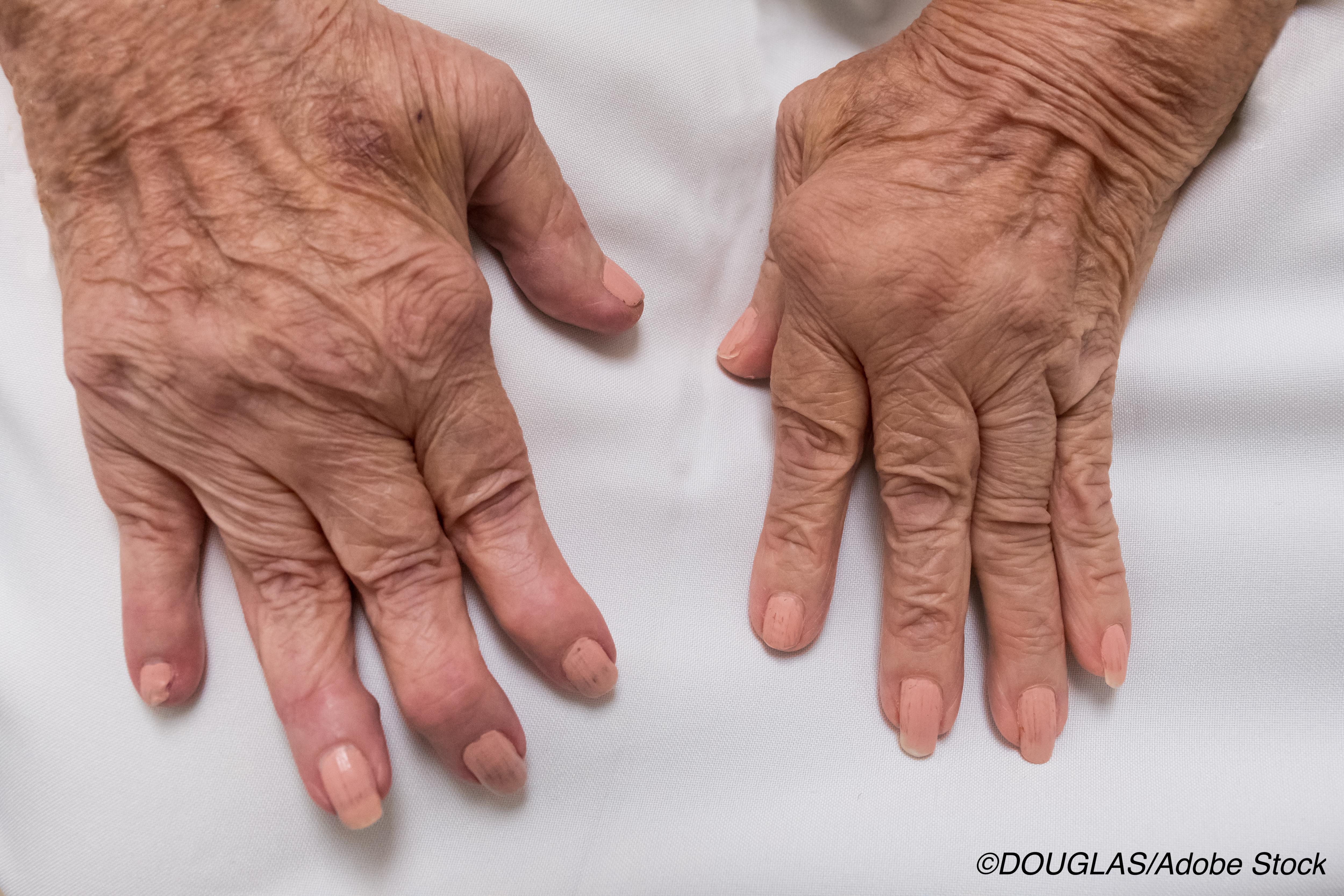类风湿性关节炎:当DMARDS失败时,JAK抑制剂可以介入吗?