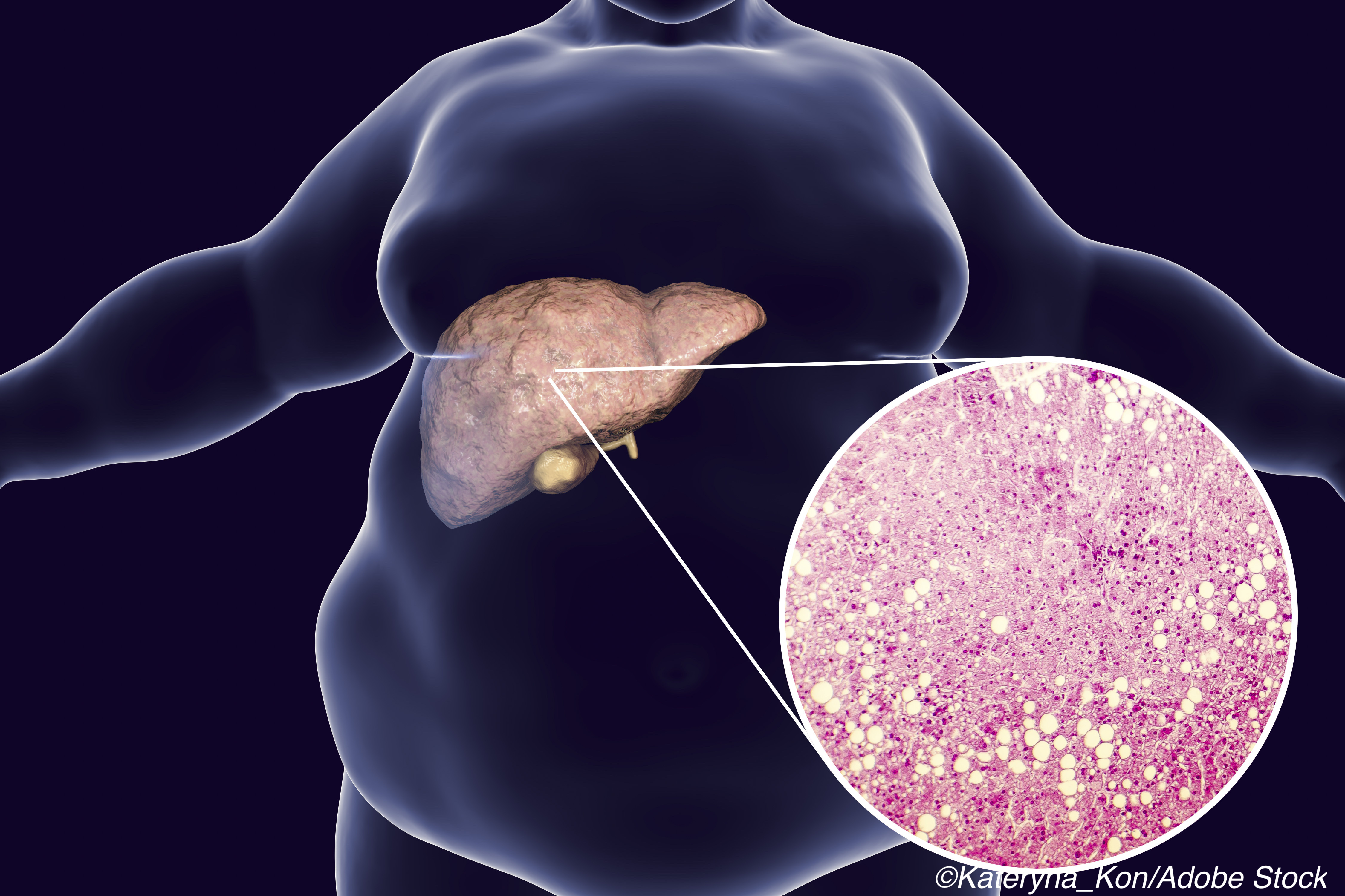 NAFLD: Pair of Lancet Studies Report Treatment Breakthroughs