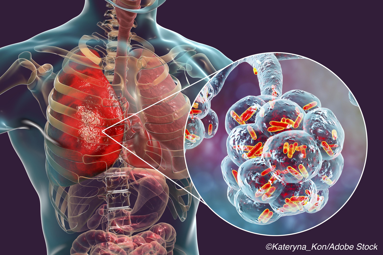 Novel Antibiotic Cefiderocol Effective Against Nosocomial Pneumonia