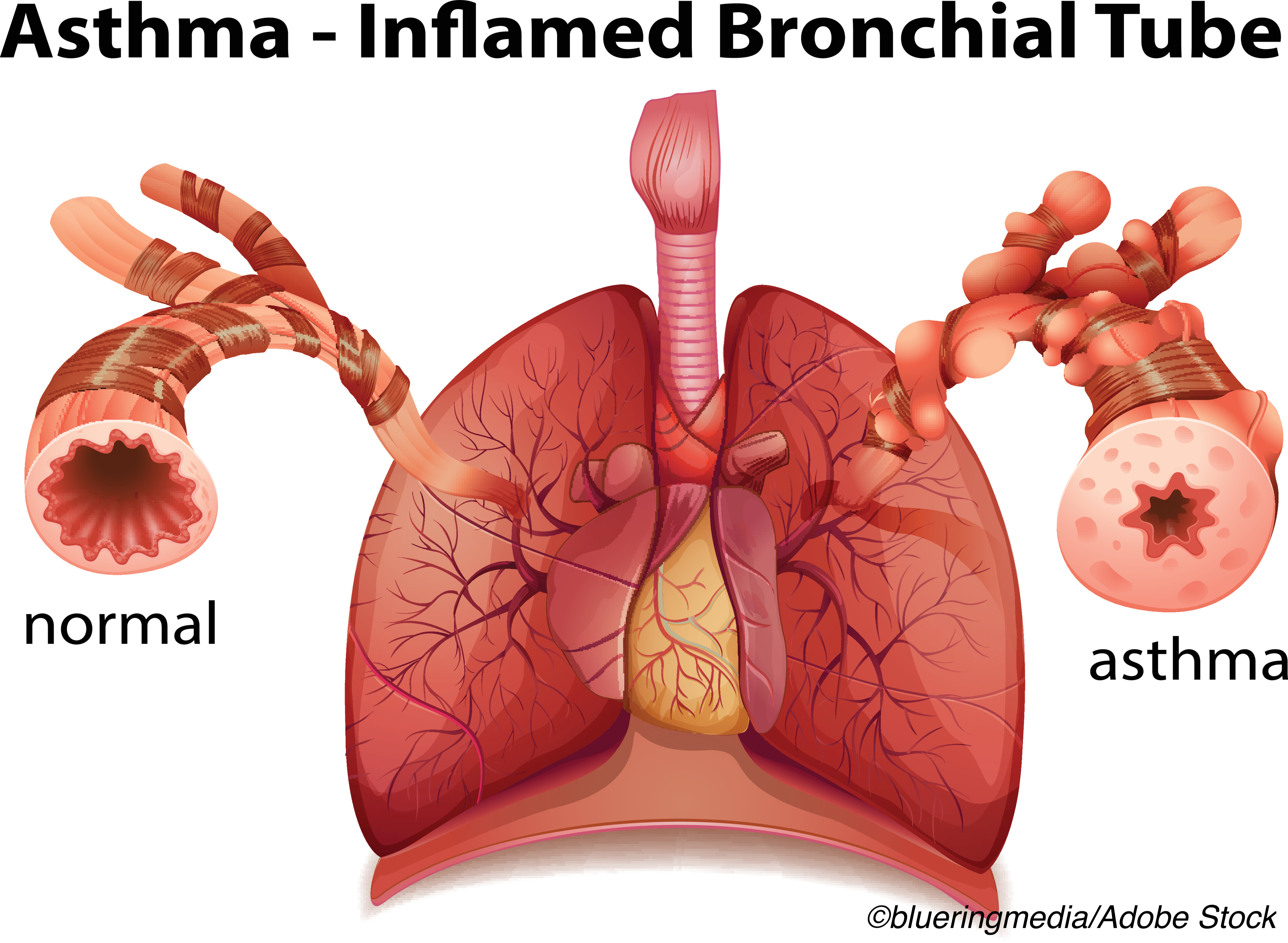 CHEST: Bronchial Thermoplasty Demonstrates Durable Benefits for Asthma