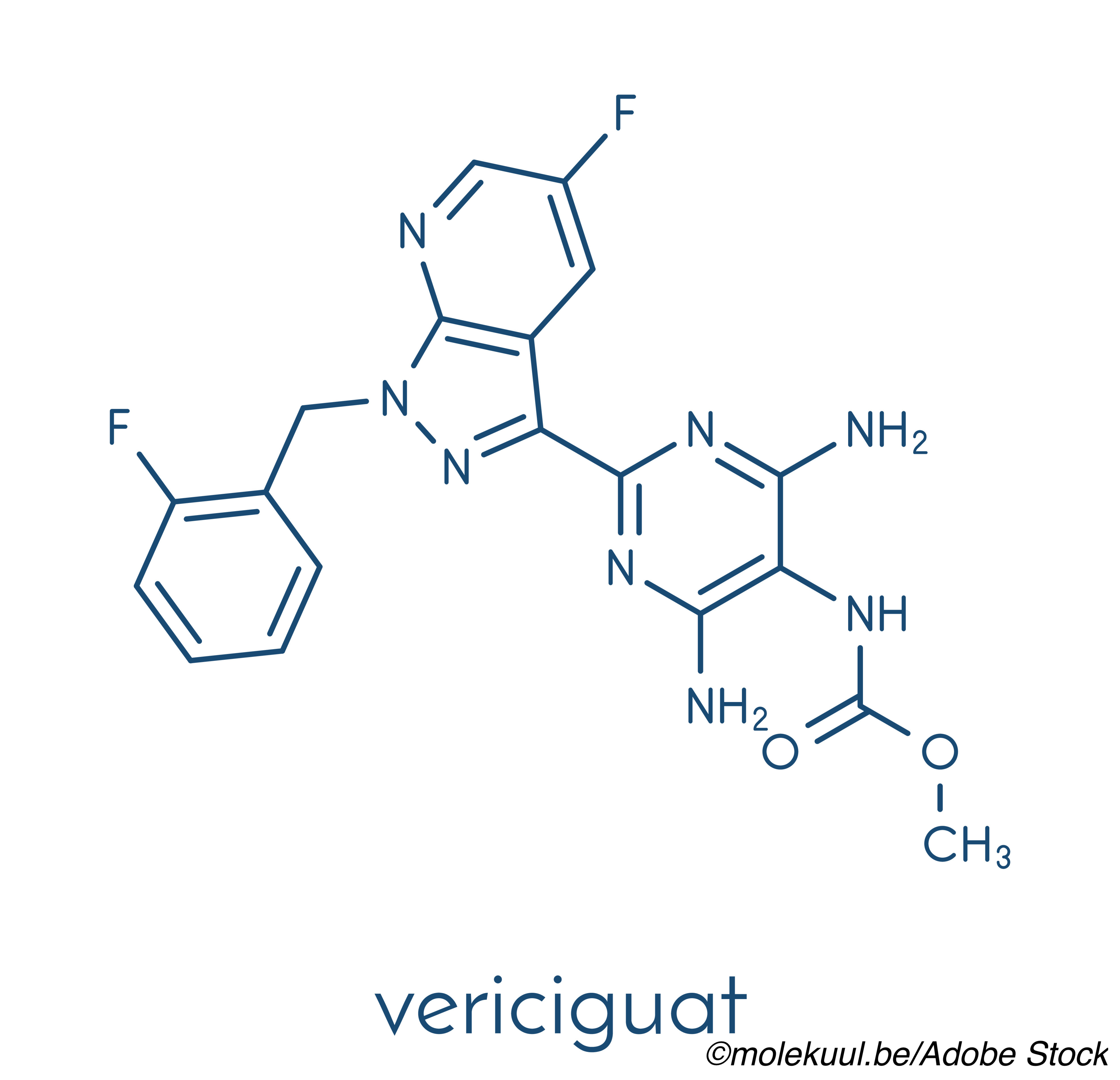 Vericiguat Lands with a Thud in HFpEF