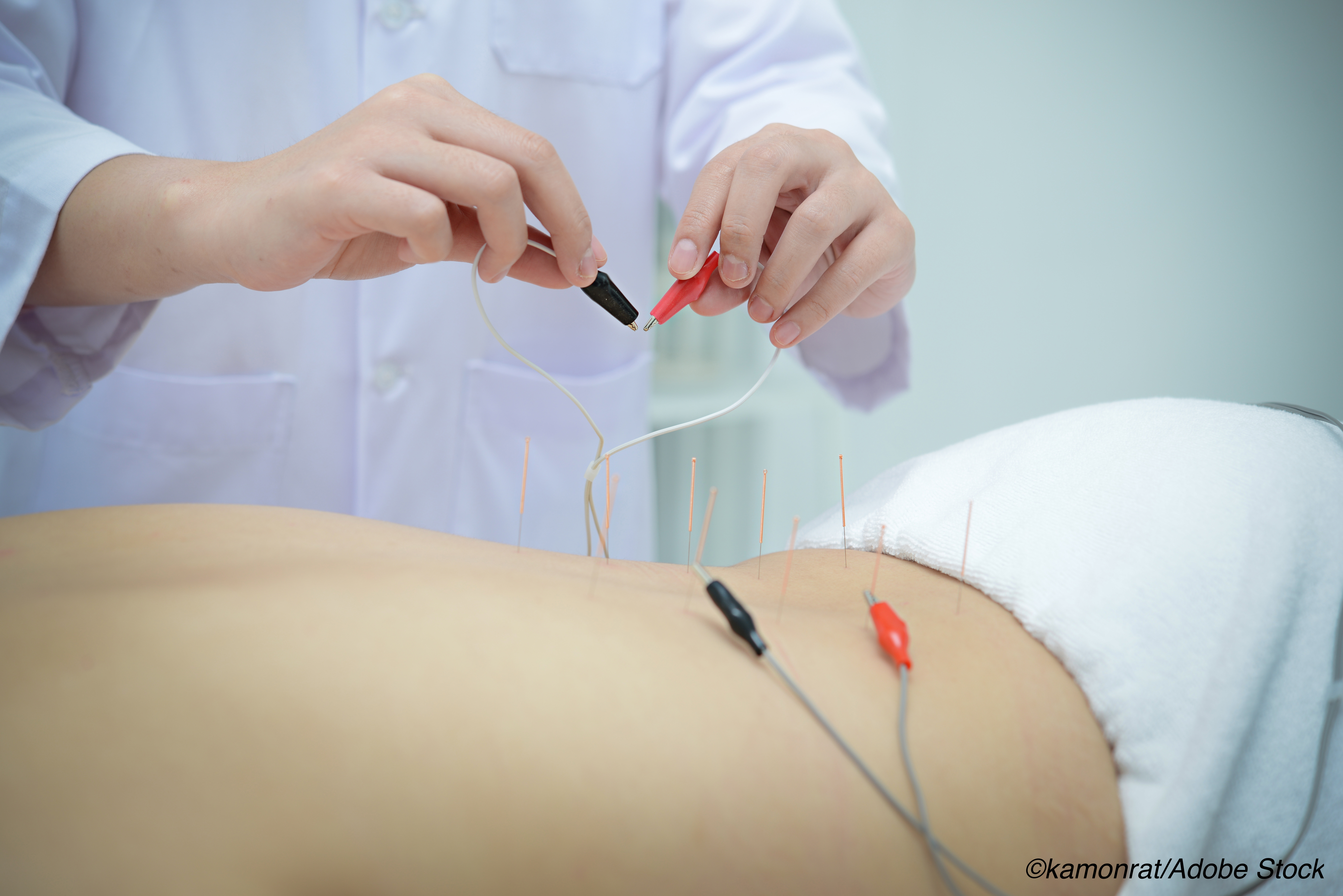 Electroacupuncture Improves Pain-Specific Disability in Chronic Low Back Pain Over Placebo