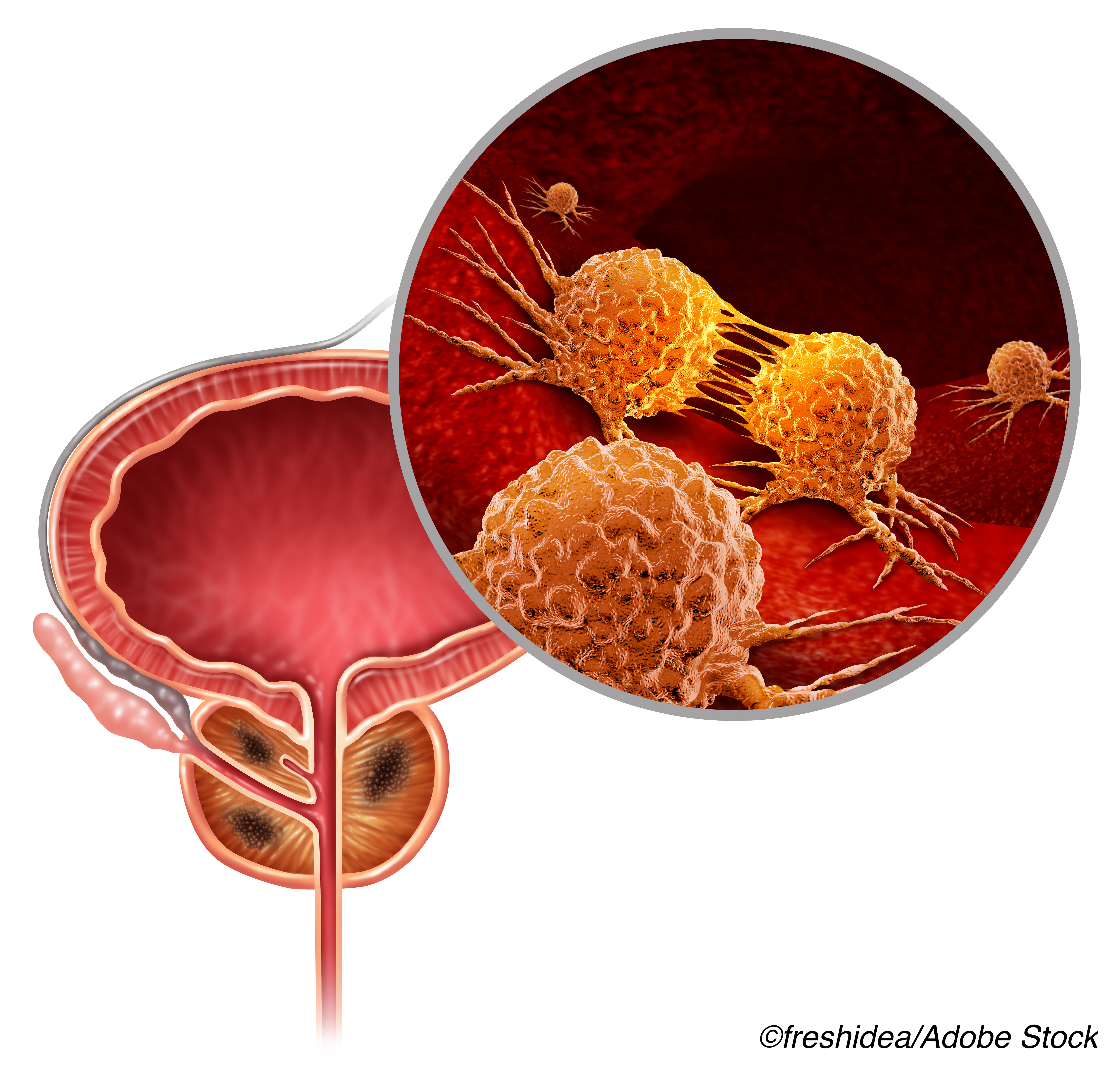 Consider Platinum-Based Therapies for Advanced Prostate Cancer