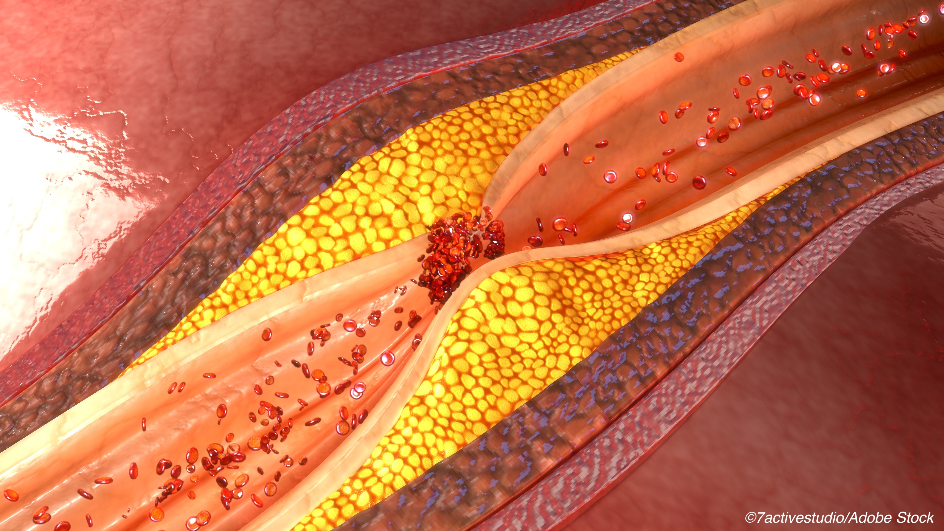 Lower LDL Linked to Improved CVD Outcomes in Diabetes Patients Following Revascularization