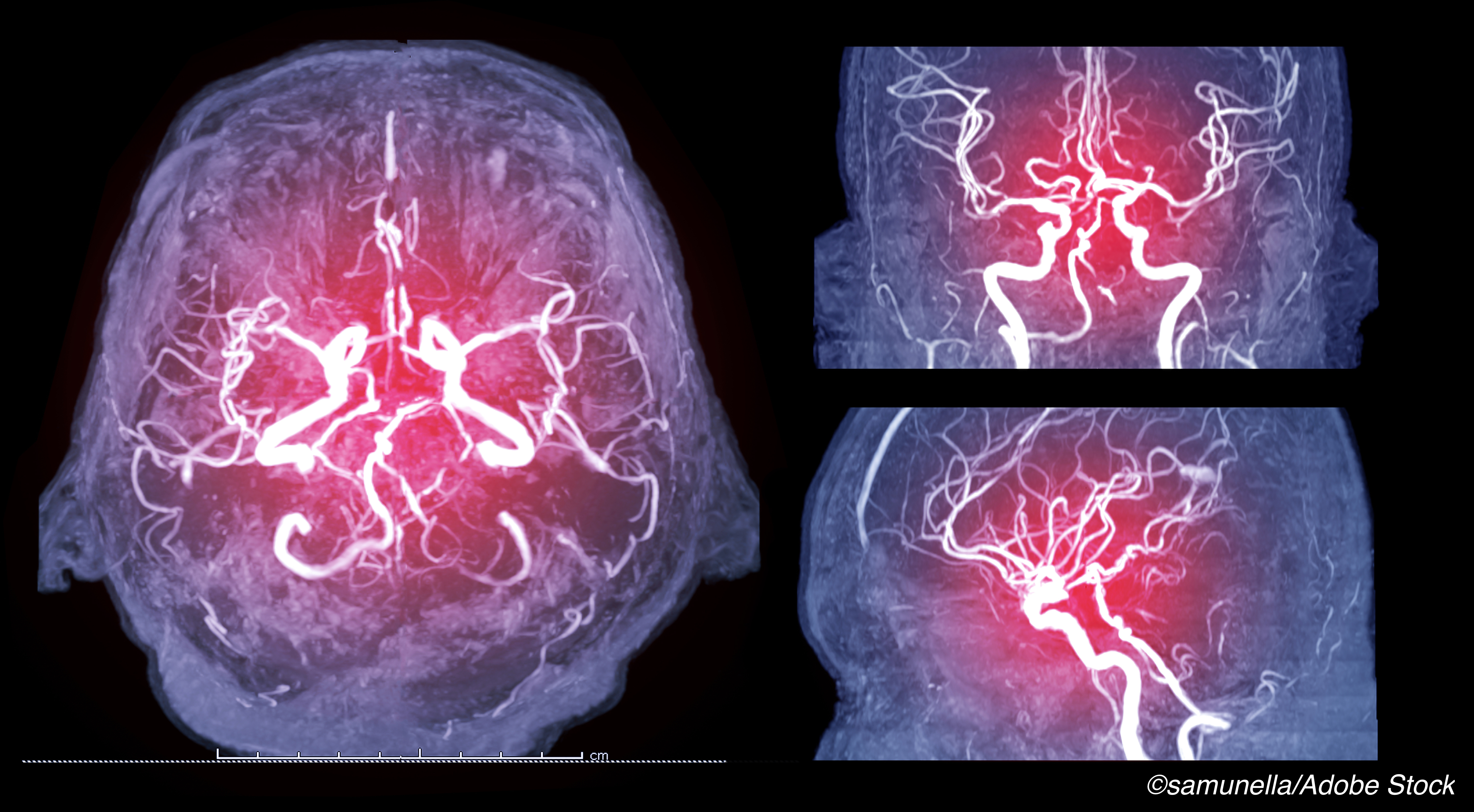 Multimodal CT Shows Benefit When Stroke Onset Time Is Unknown