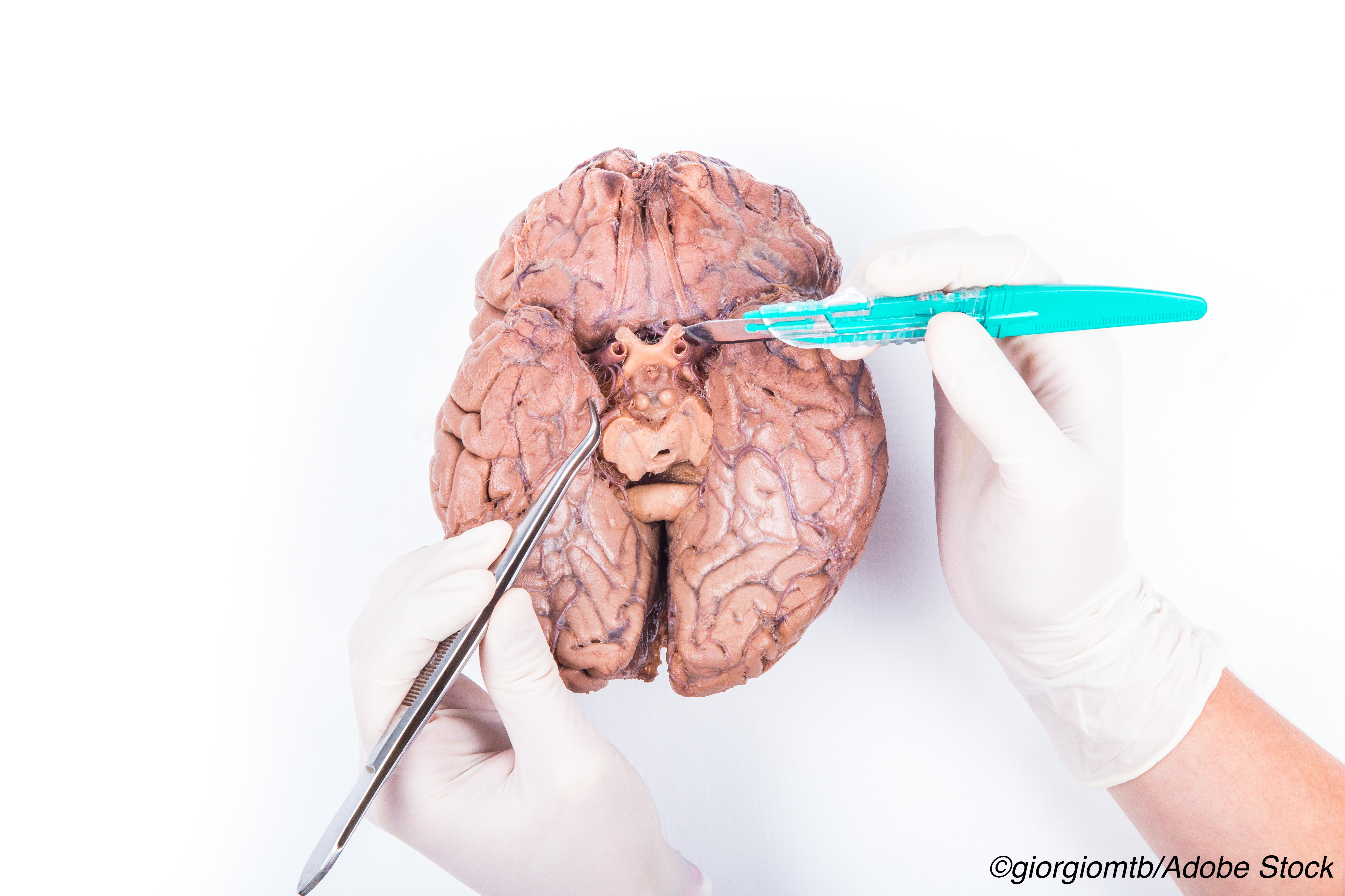 Brain Autopsies Show APOE2 Not Protective Against CVD, Including CAA
