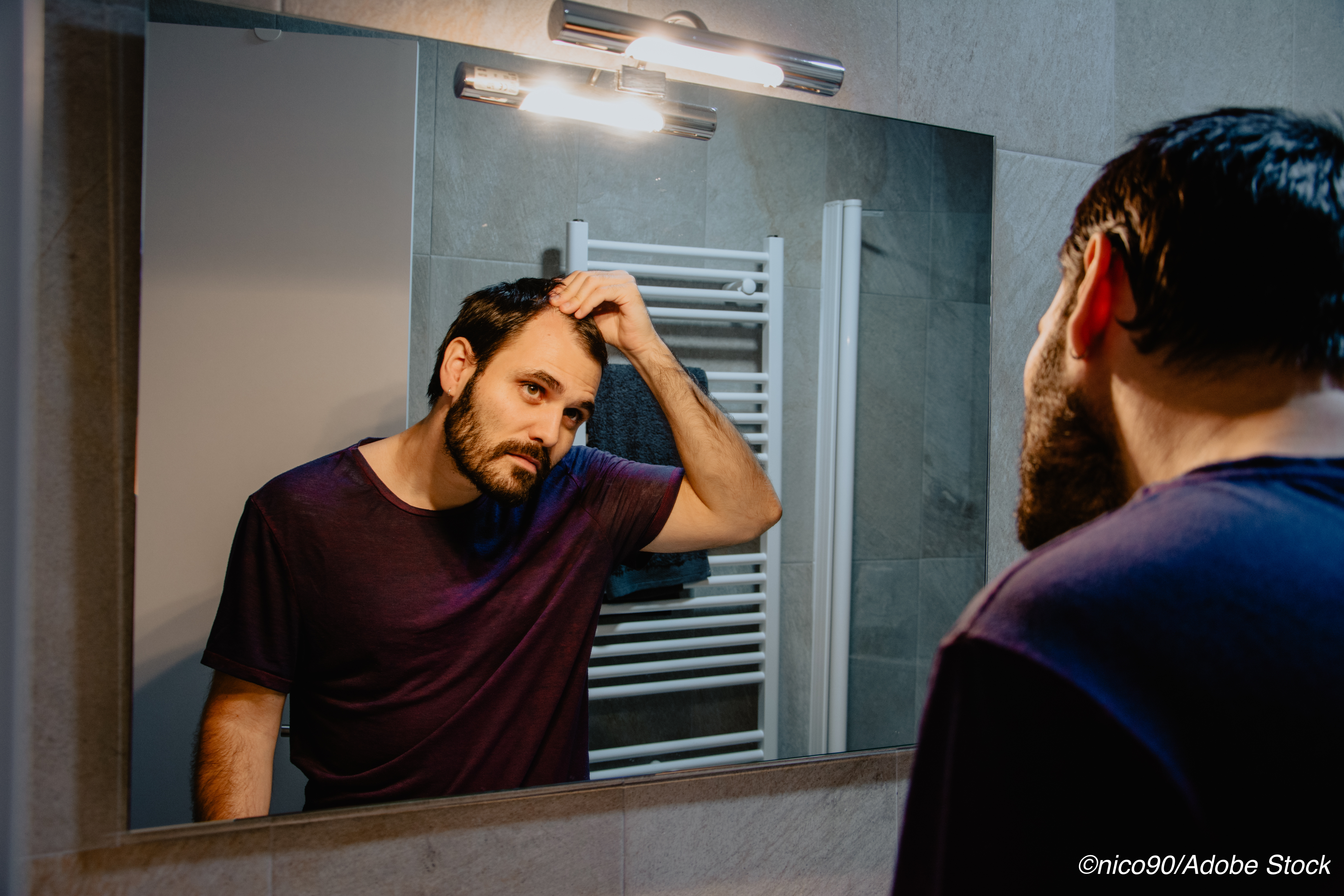 Hair Loss Drug Finasteride May Increase Suicide Risk Younger Men
