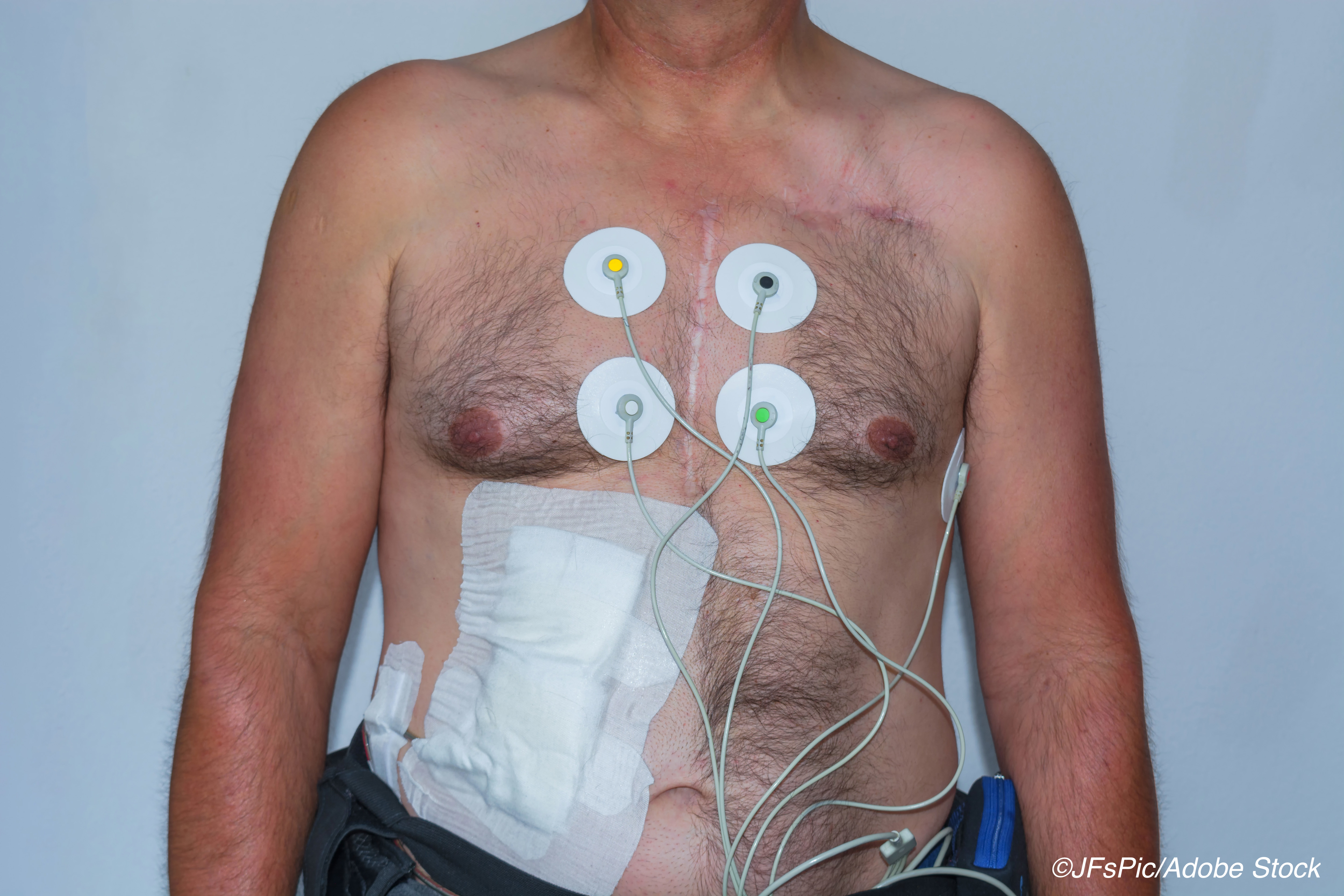 Perioperative MACE Common in LVAD Patients Undergoing Noncardiac Surgery