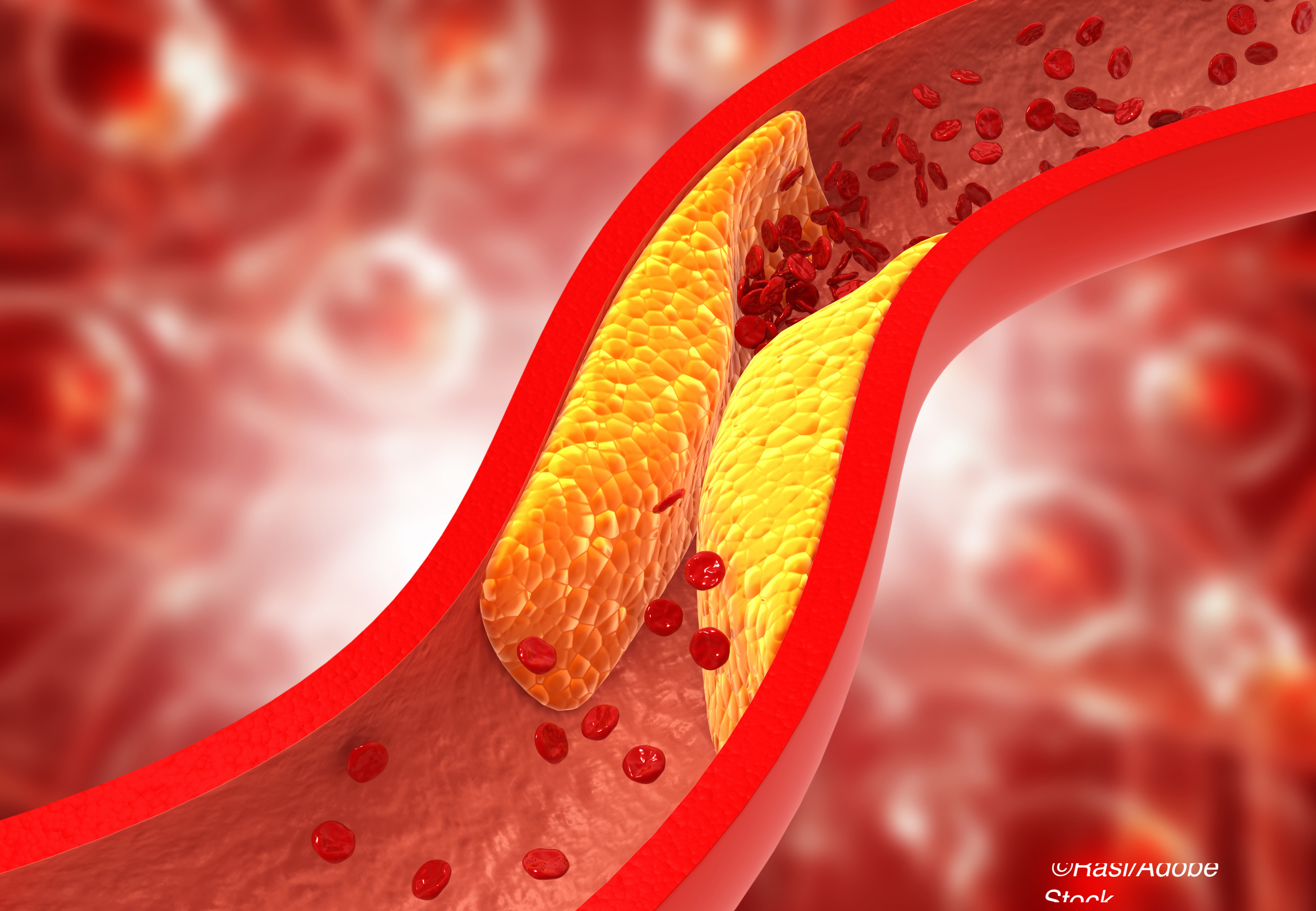 AHA: Silent CVD Common in 'Healthy' People