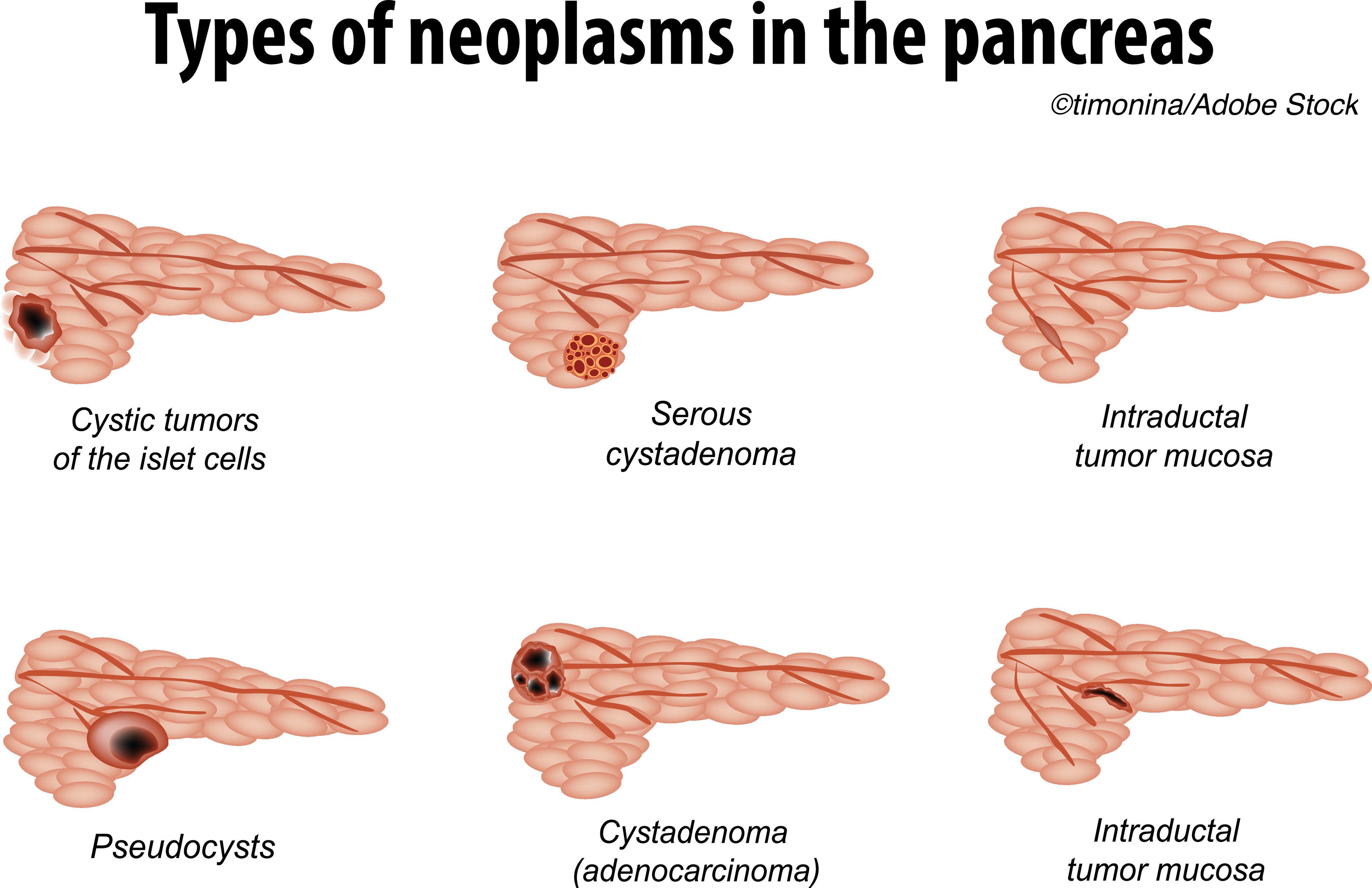 Study Questions Predictive Value of Size for Pancreatic Cyst Progression