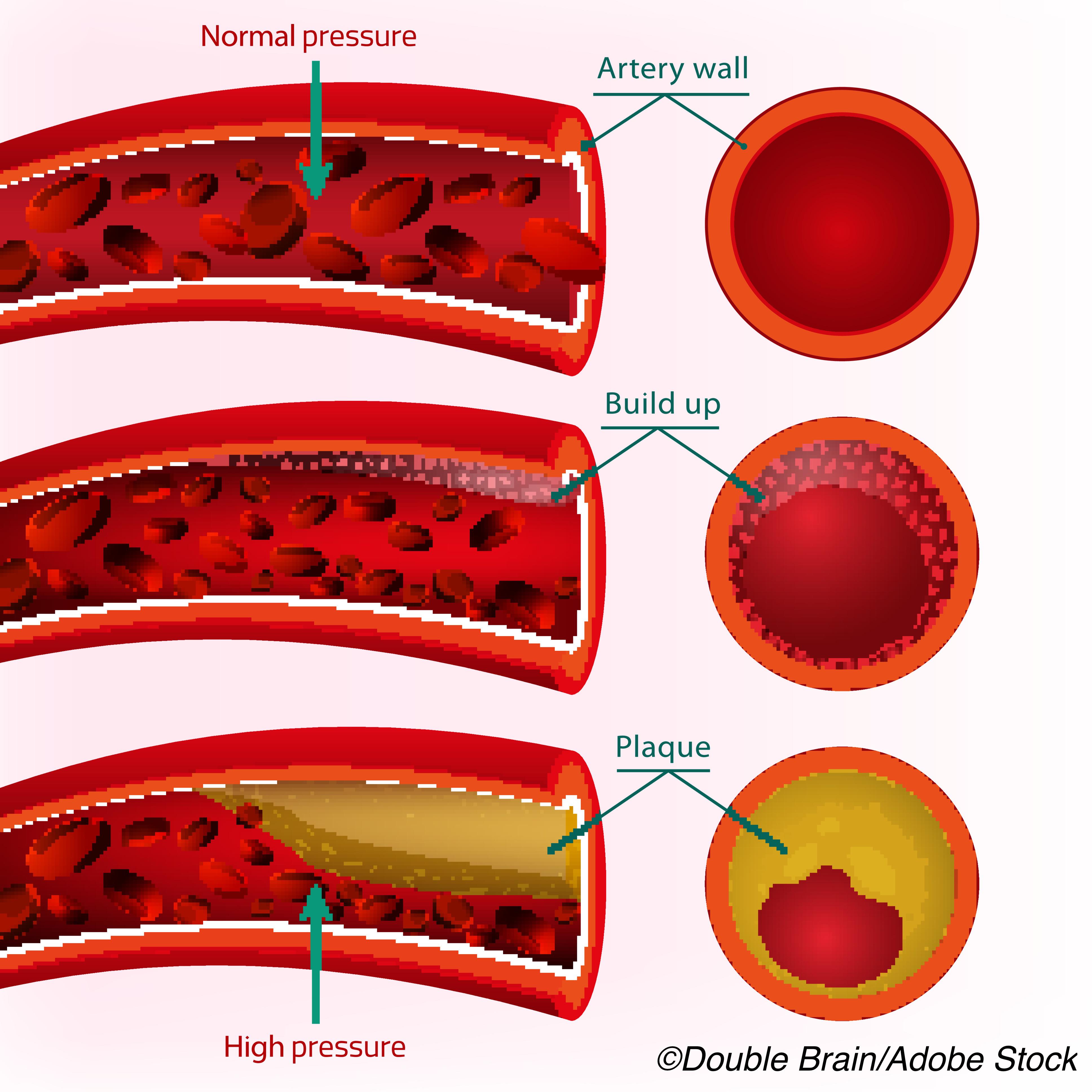 Coronary Artery Calcium Scores Predict Major CV Events As Well as Stenosis