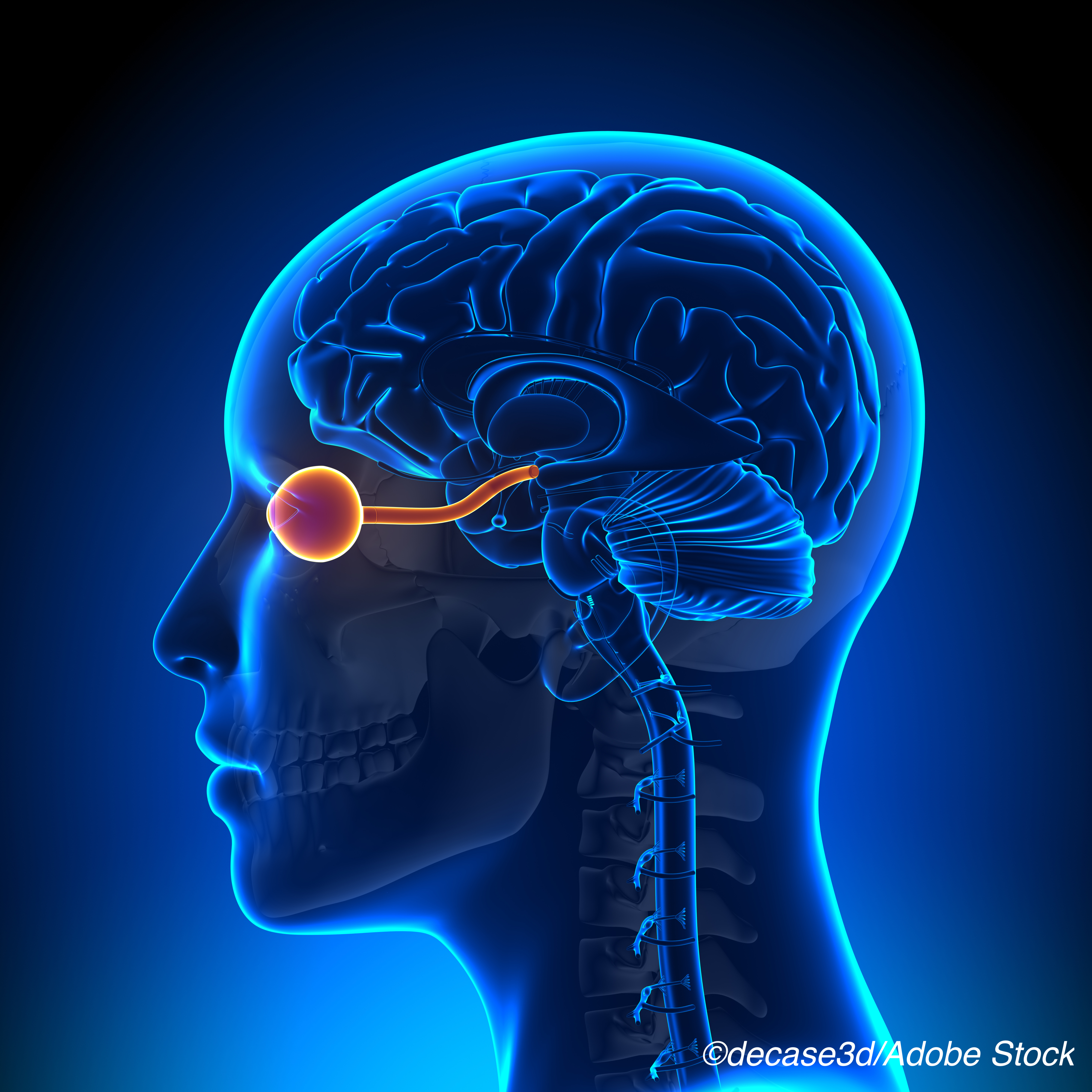 Optic Nerve Lesions May Help Improve MS Diagnosis