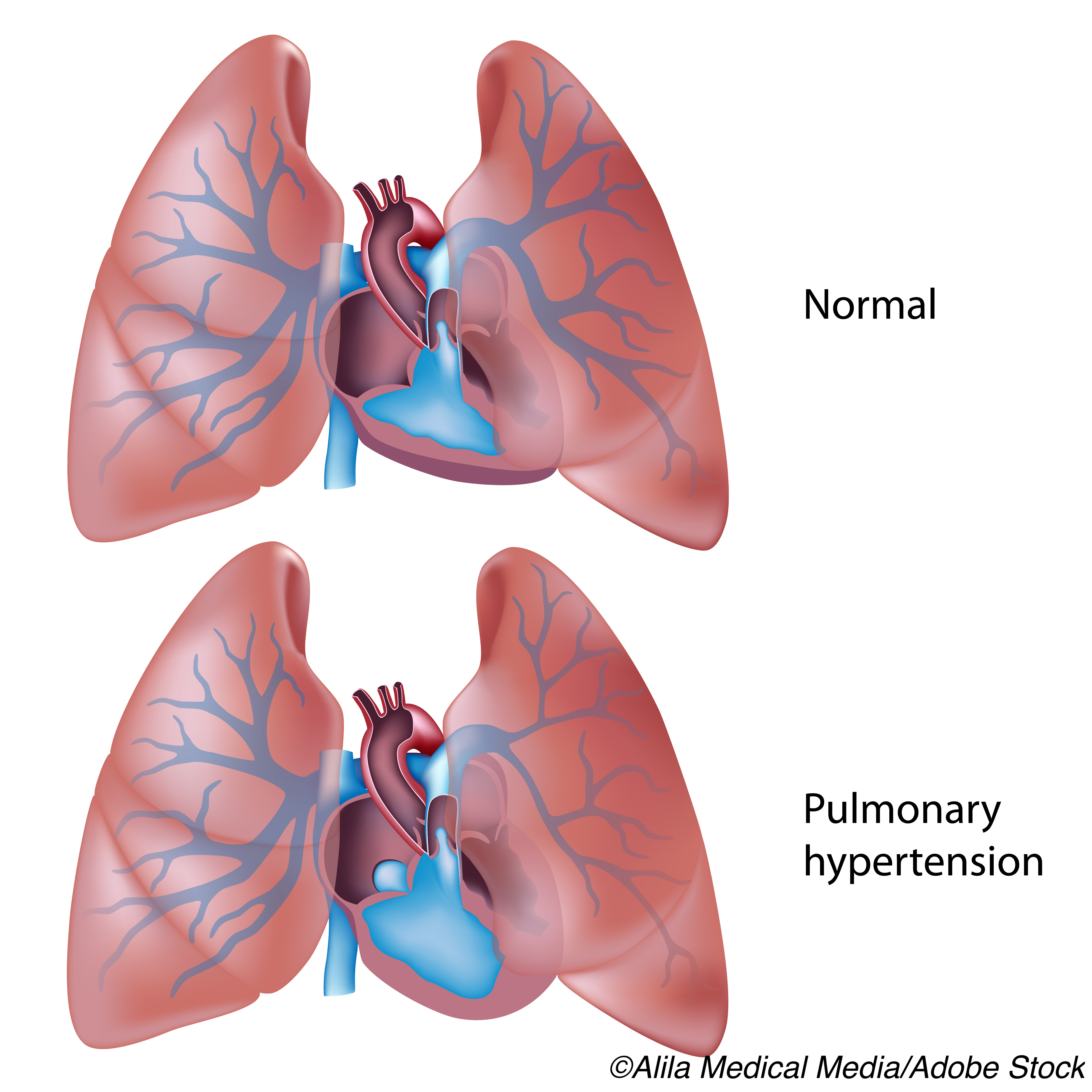 Novel Inhaled Treprostinil May Benefit Persons with Pulmonary Hypertension