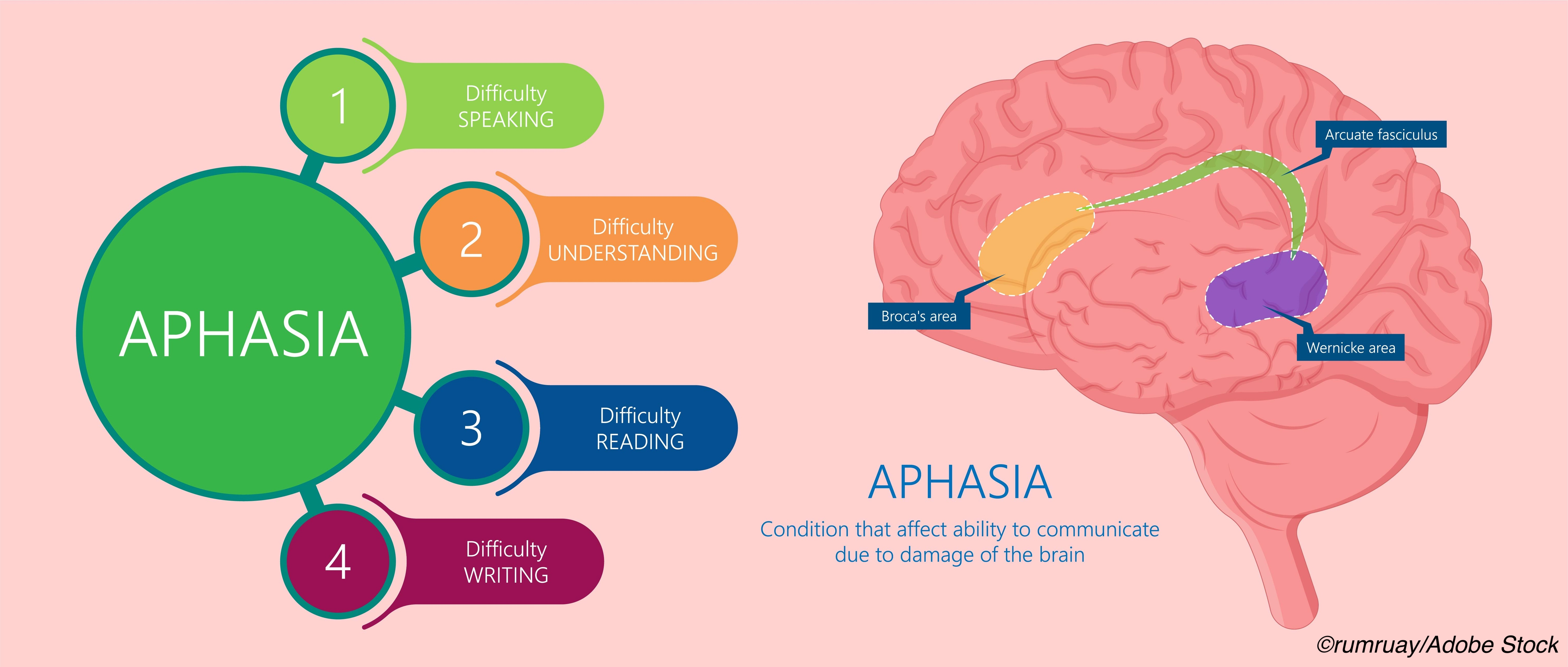 Memory Preserved in Primary Progressive Aphasia with Alzheimer's Disease