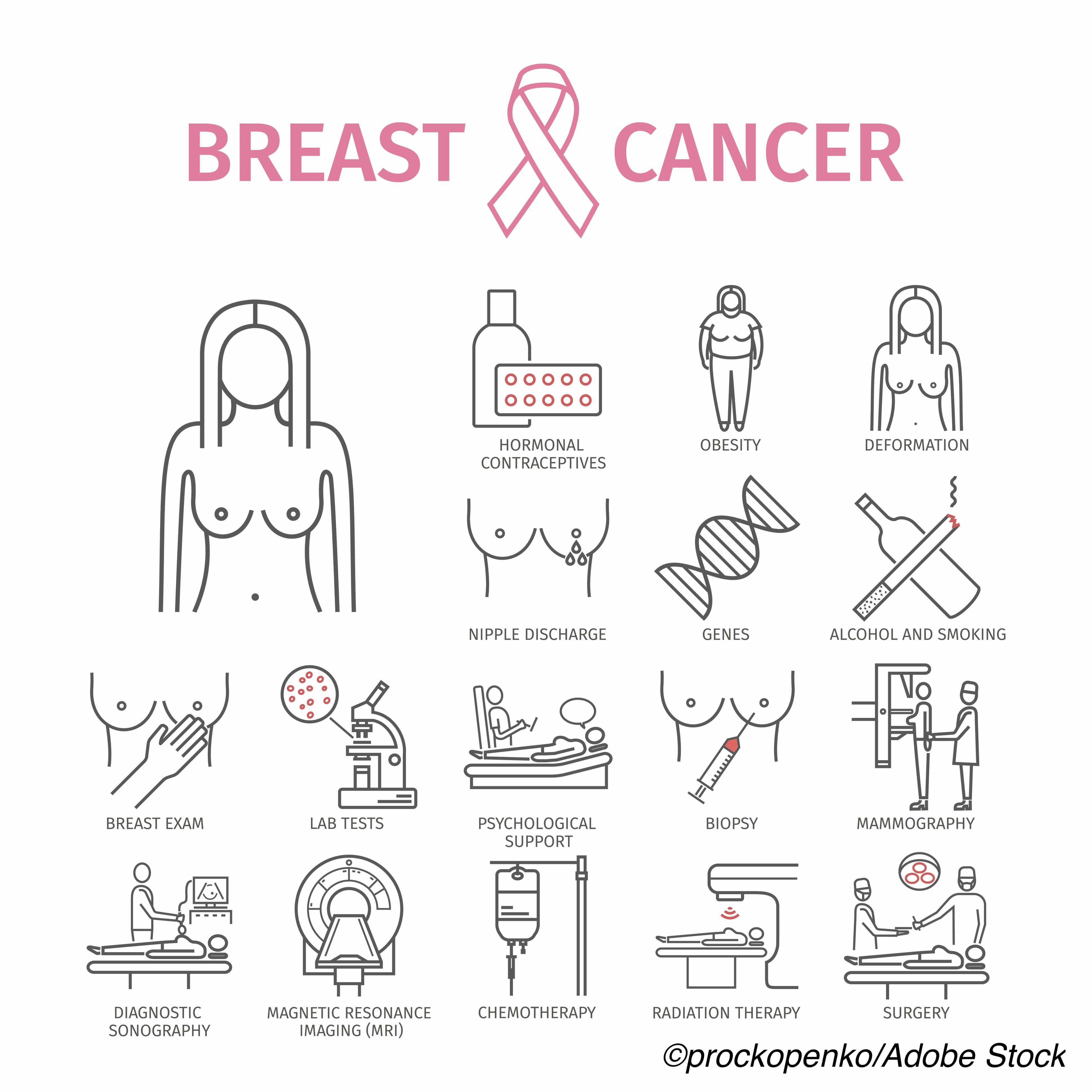 U.S./U.K. Researchers Agree On 8 Genes/Variants That Increase Breast Cancer Risks