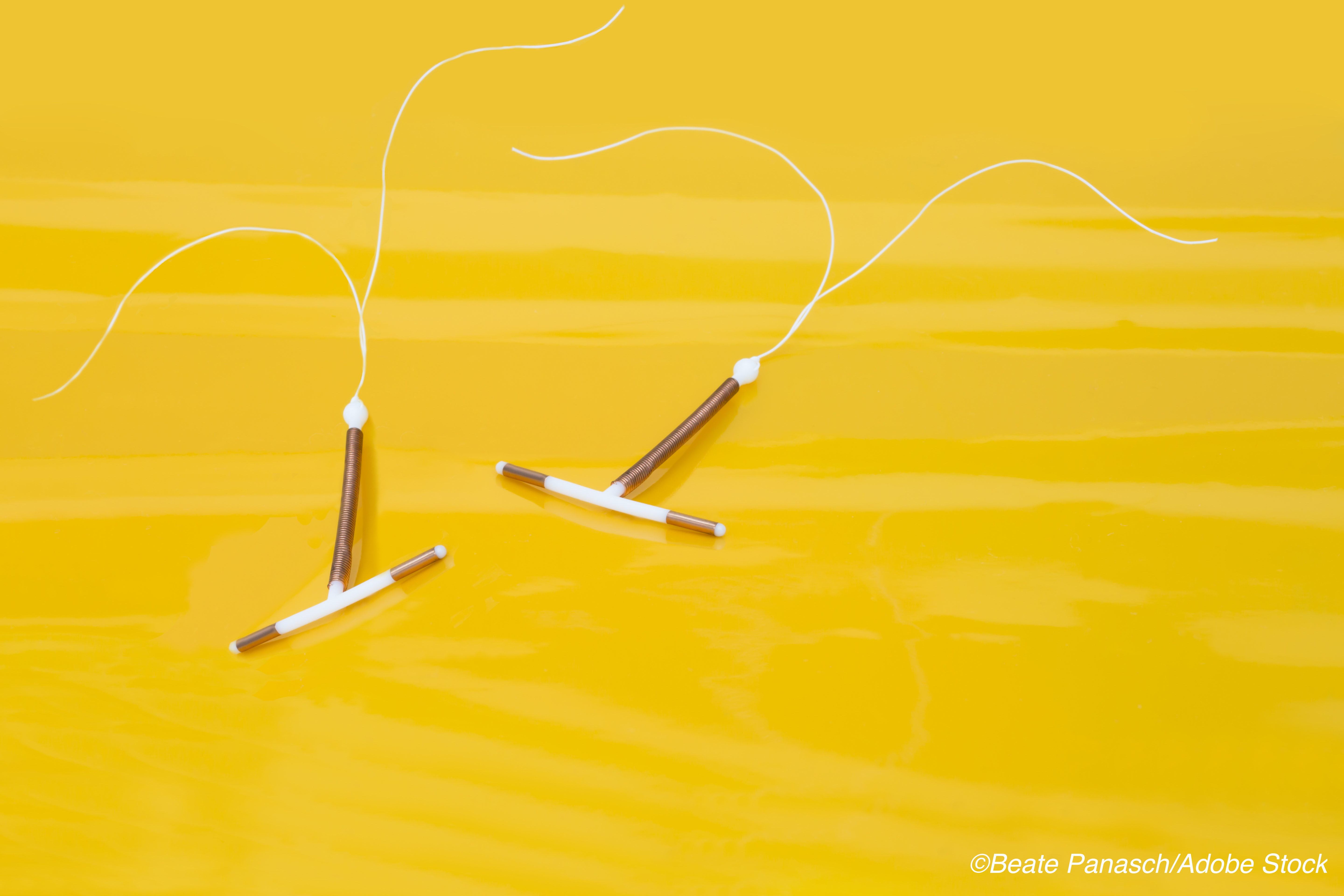 Hormonal IUD is Highly Effective Emergency Contraceptive