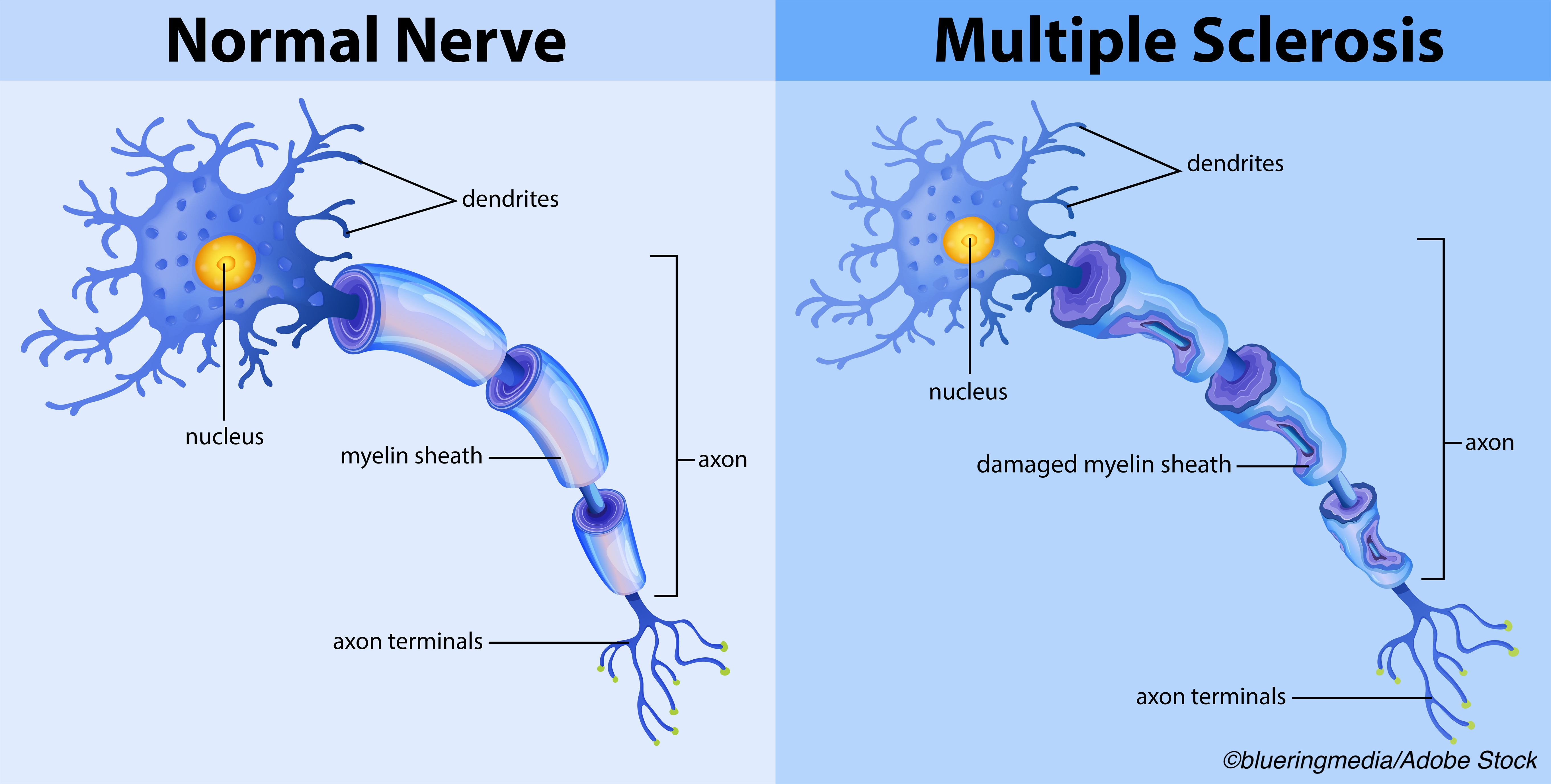 Lateral Tx Switches in Patients with Clinically Stable MS Do Not Increase Risks of Relapse, Disability