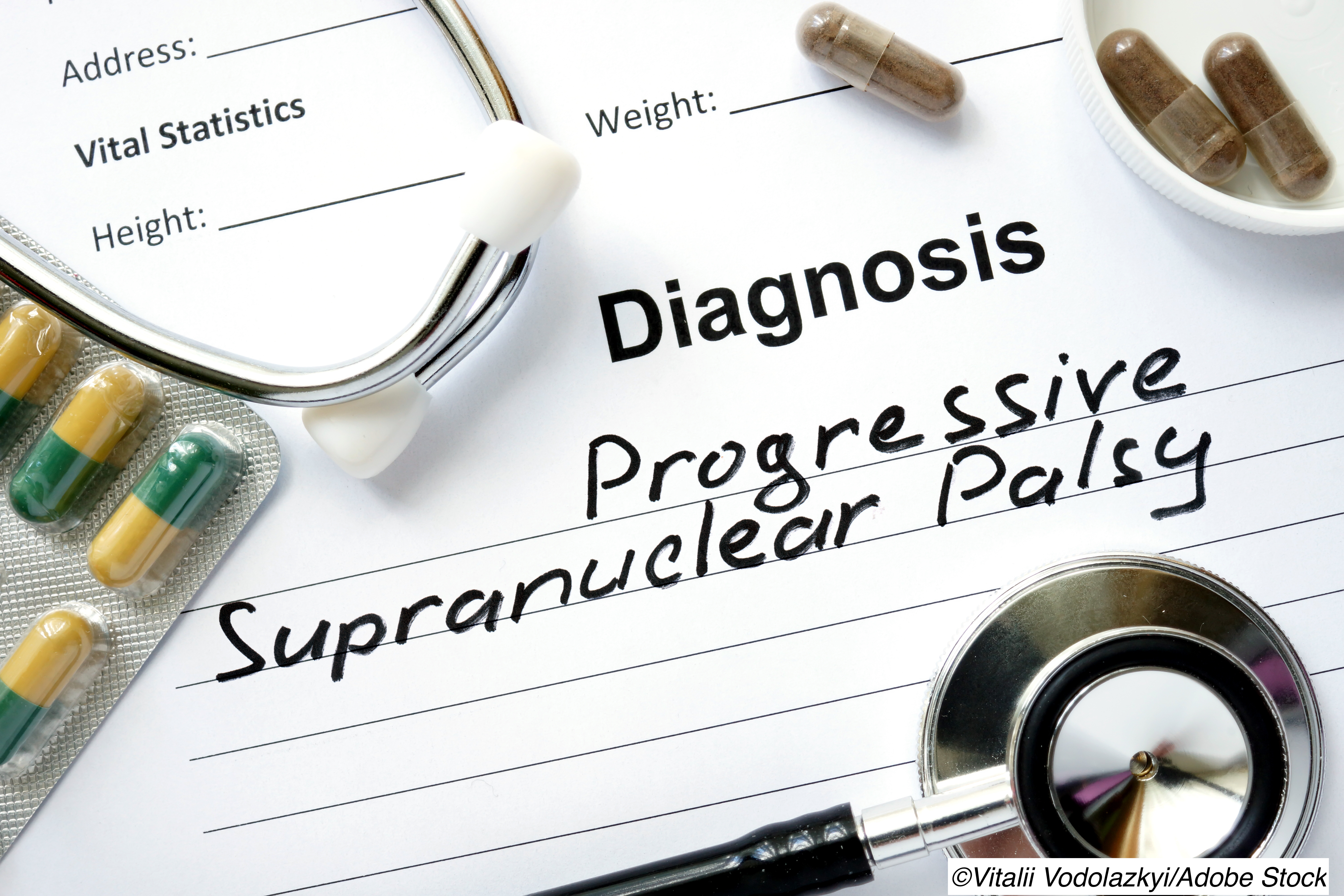 Tau Monoclonal Antibody Fails in Progressive Supranuclear Palsy