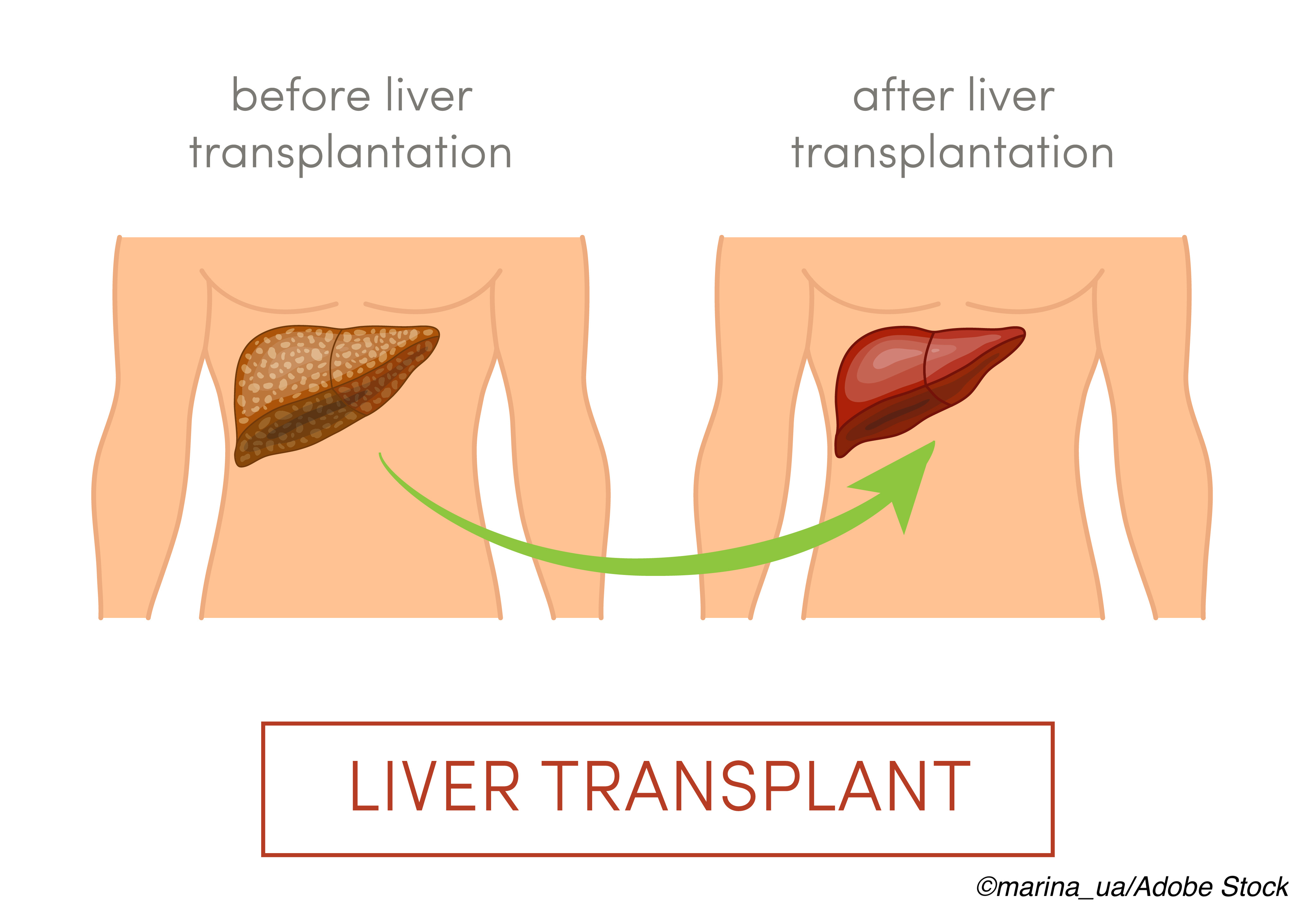 Liver Transplants: Trial Reports Benefits for Cold Perfusion