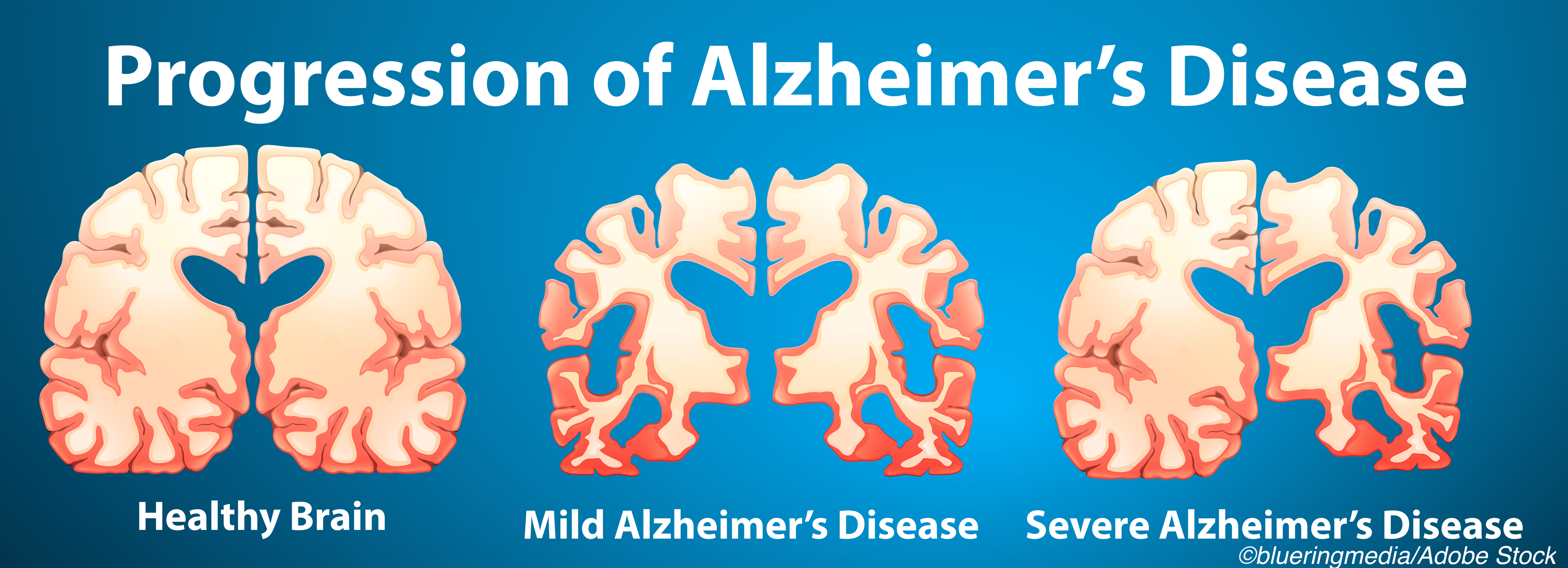 Alzheimer's Disease: From Diagnosis to Treatment, Change Is Coming