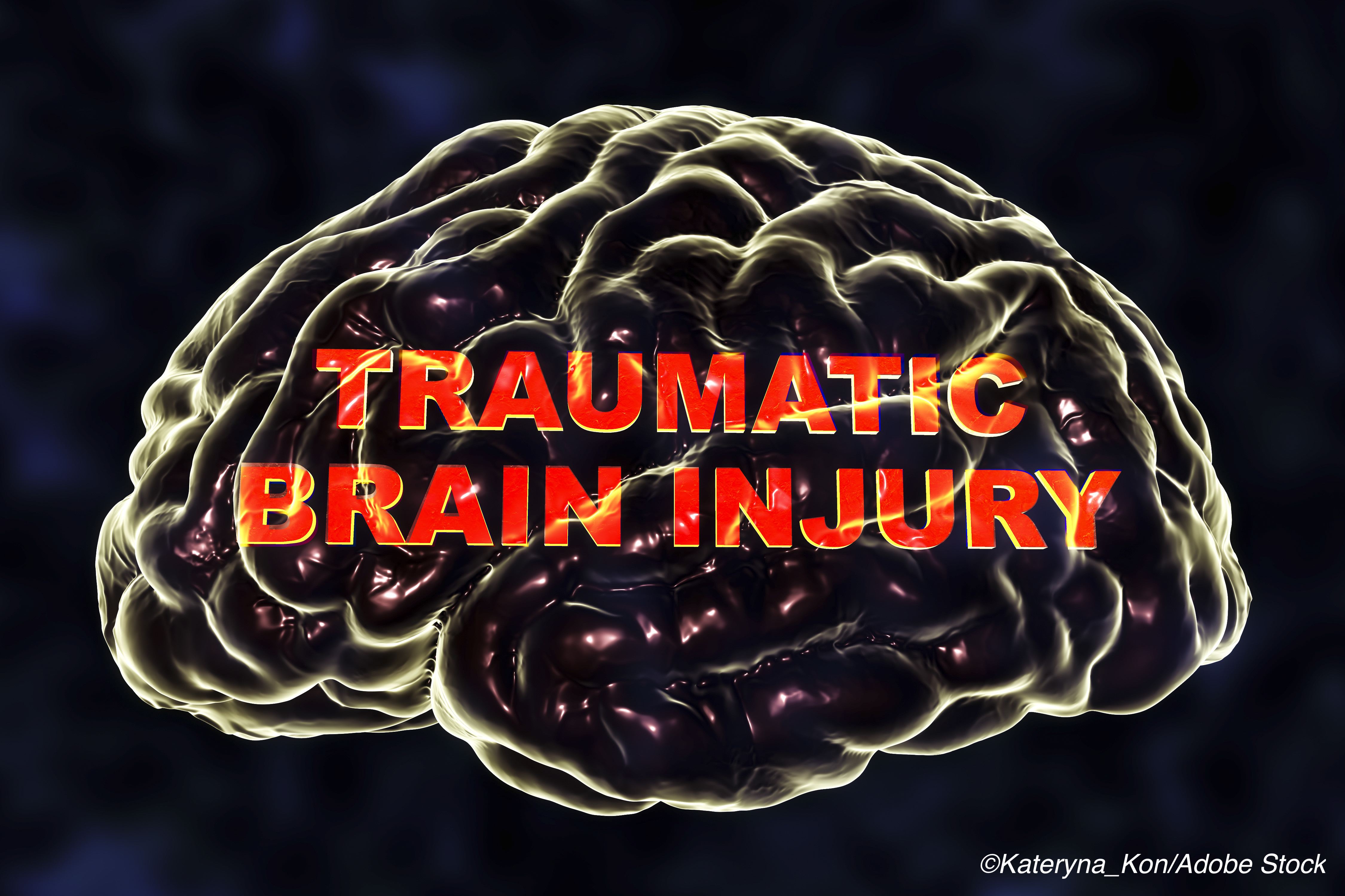 Most TBI Patients with Persistent Consciousness Problems Recover After Rehab